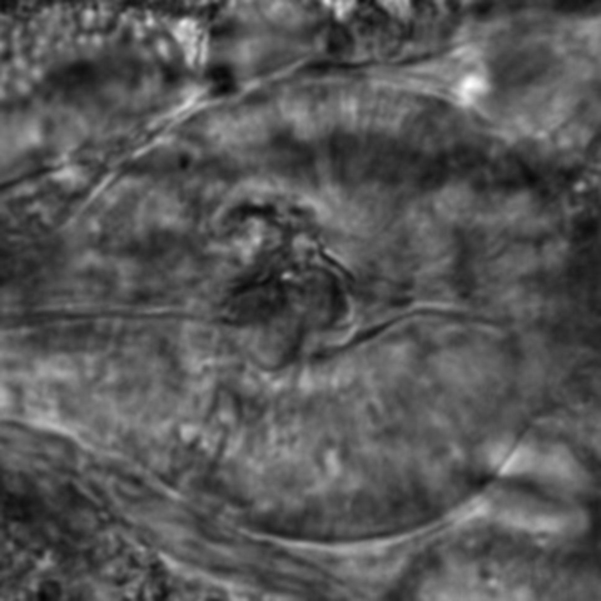 Caenorhabditis elegans - CIL:2787