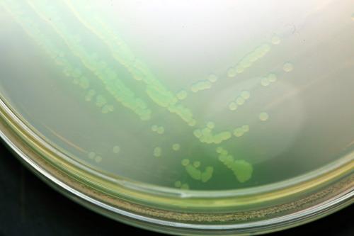 Kolonien von Pseudomonas aeruginosa wachsen in der Petrischale, der Farbstoff Pyocyanin lässt sie hellgrün erscheinen. © Christian Urban, Universität Kiel