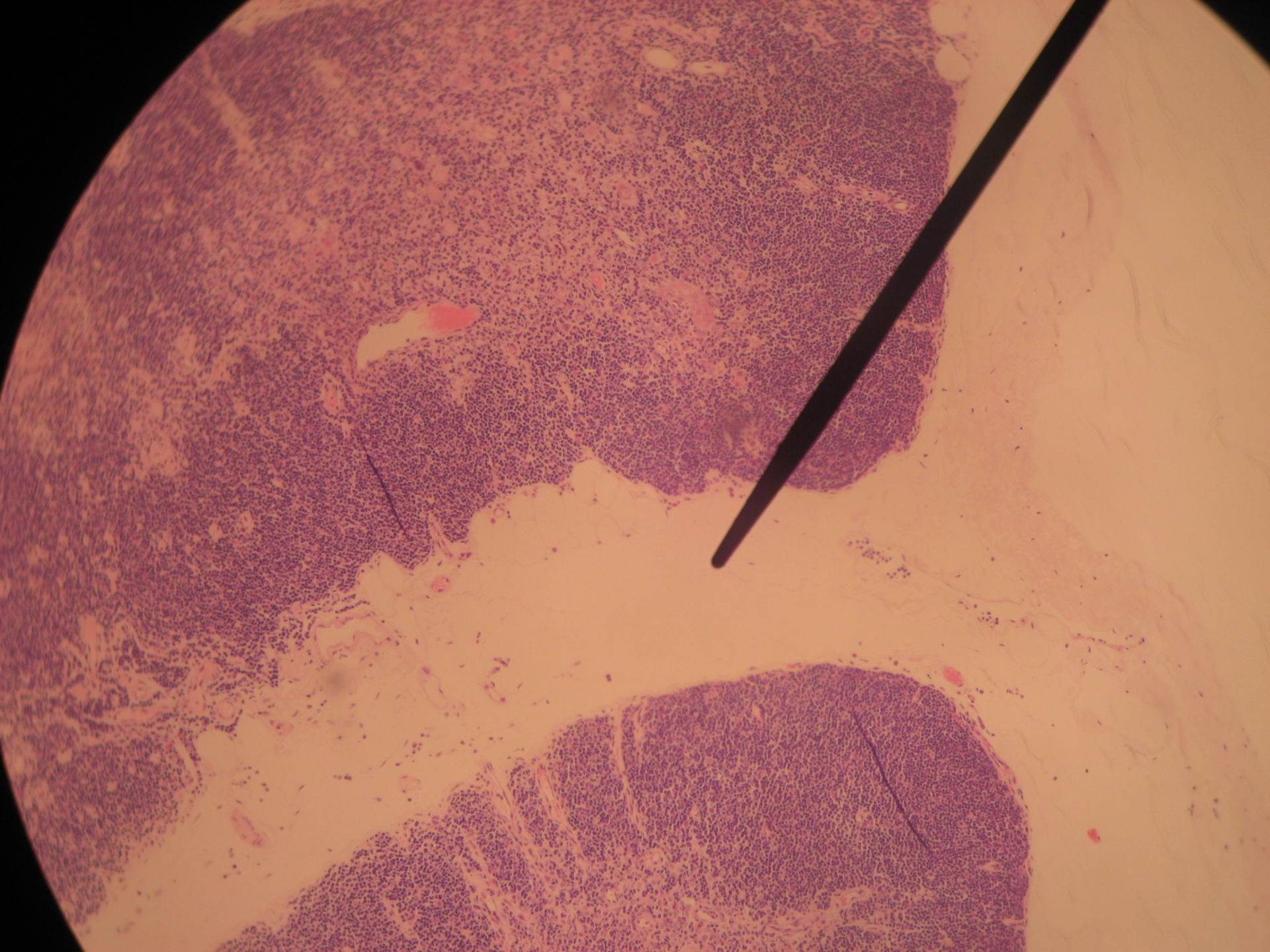 Thymus of sheep - fibrous capsule and trabecula