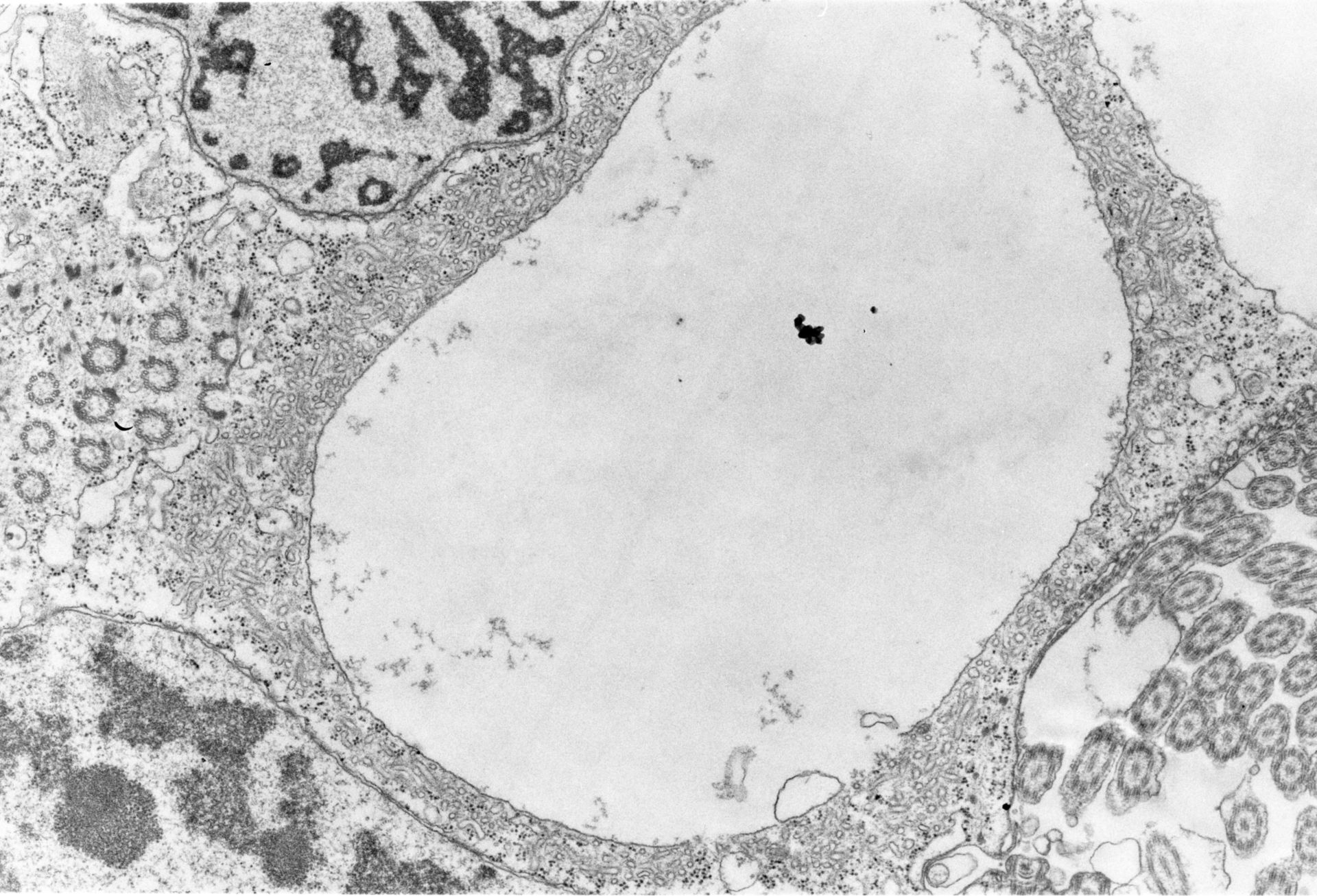 Opercularia coarctata (corpo basali microtubuli) - CIL:7334