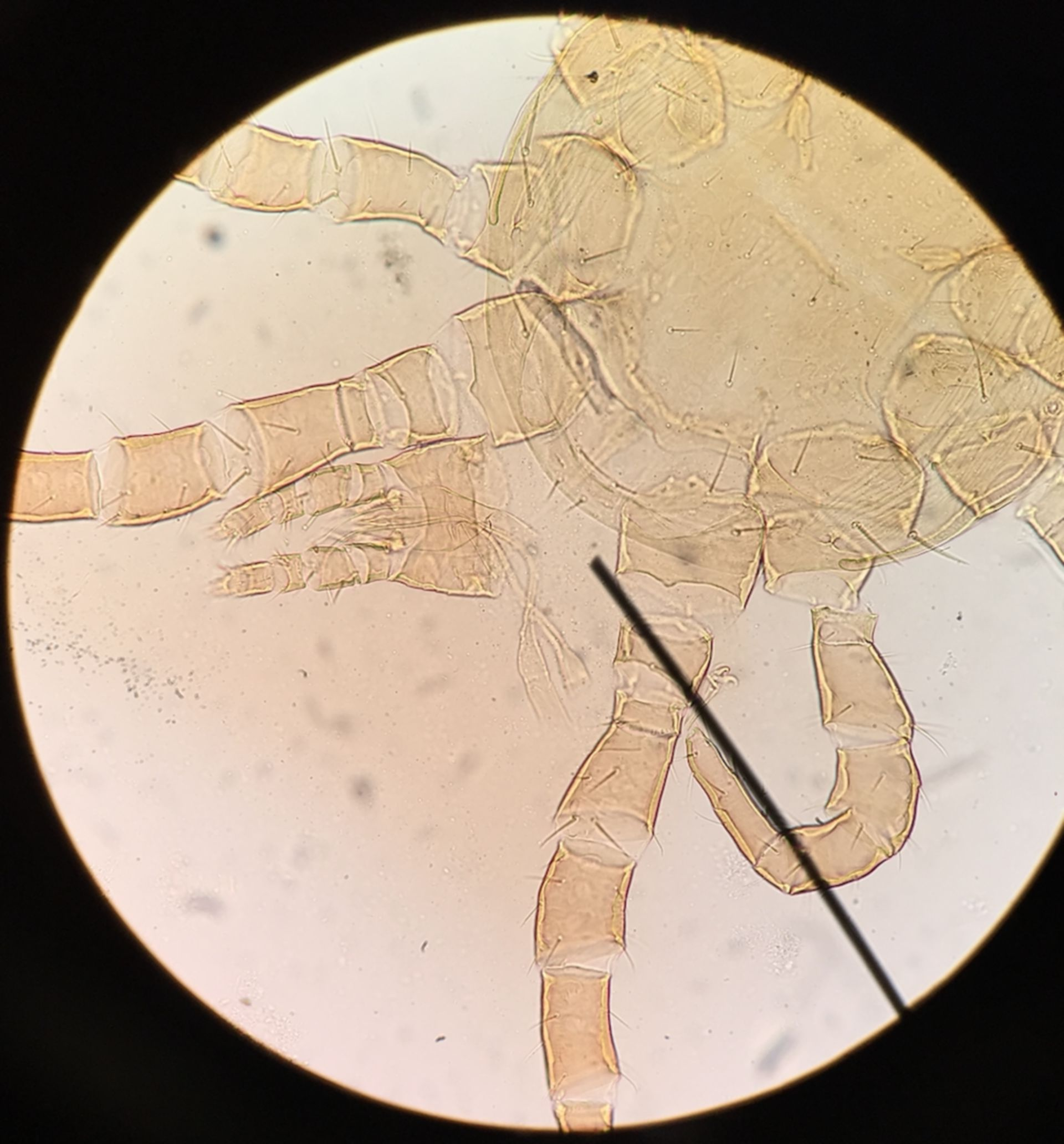 Dermanyssus gallinae (2/3)