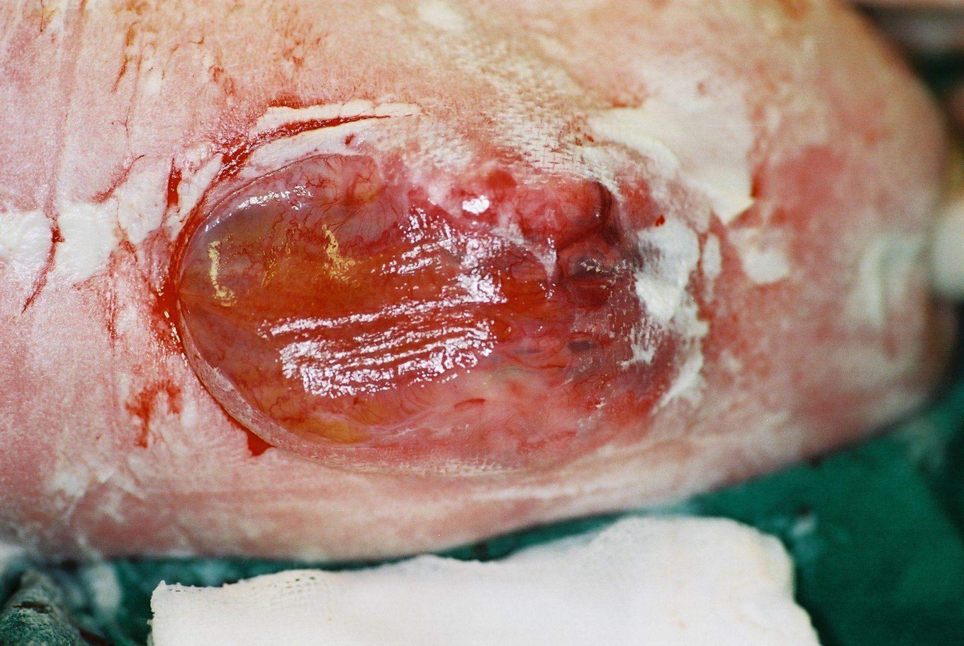 Espina Bífida - Mielomeningocele