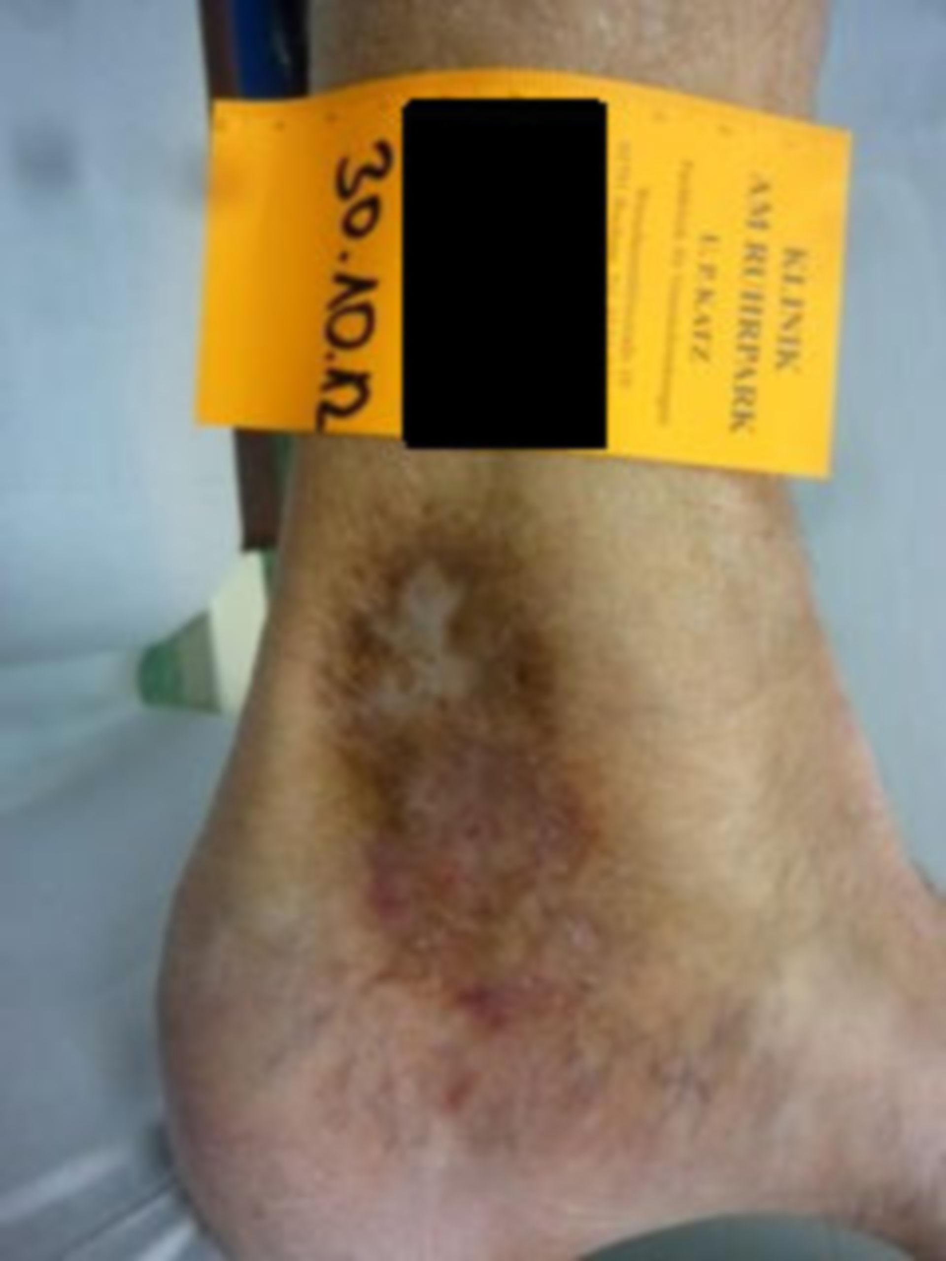 IVC con úlcera de atrofia blanca (06) progreso de curación, 30.10.2012