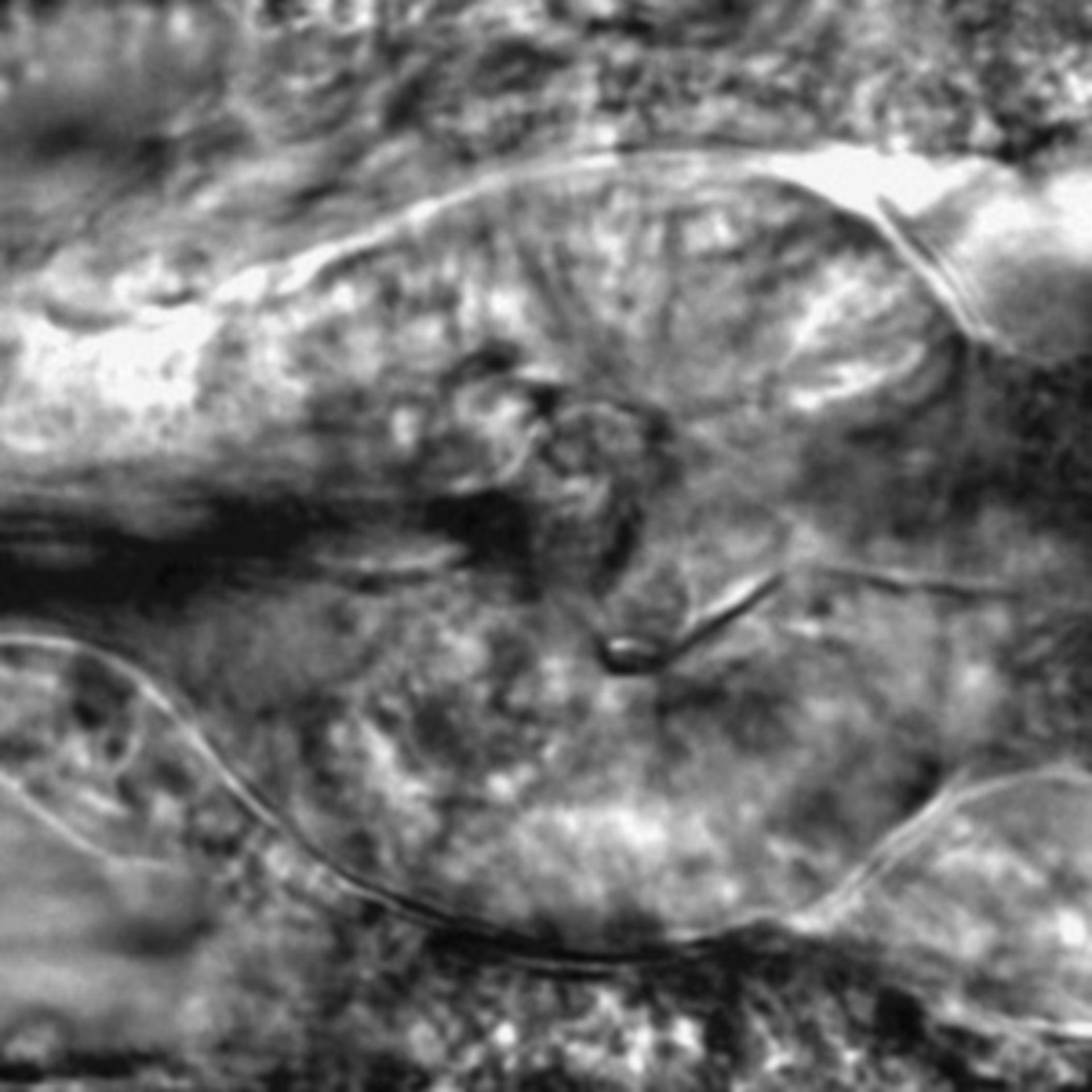 Caenorhabditis elegans - CIL:2781