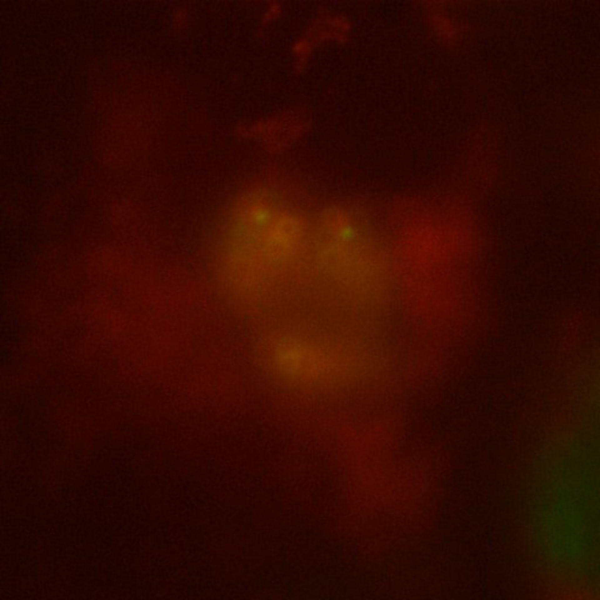 Toxoplasma gondii RH (Conoid) - CIL:10491