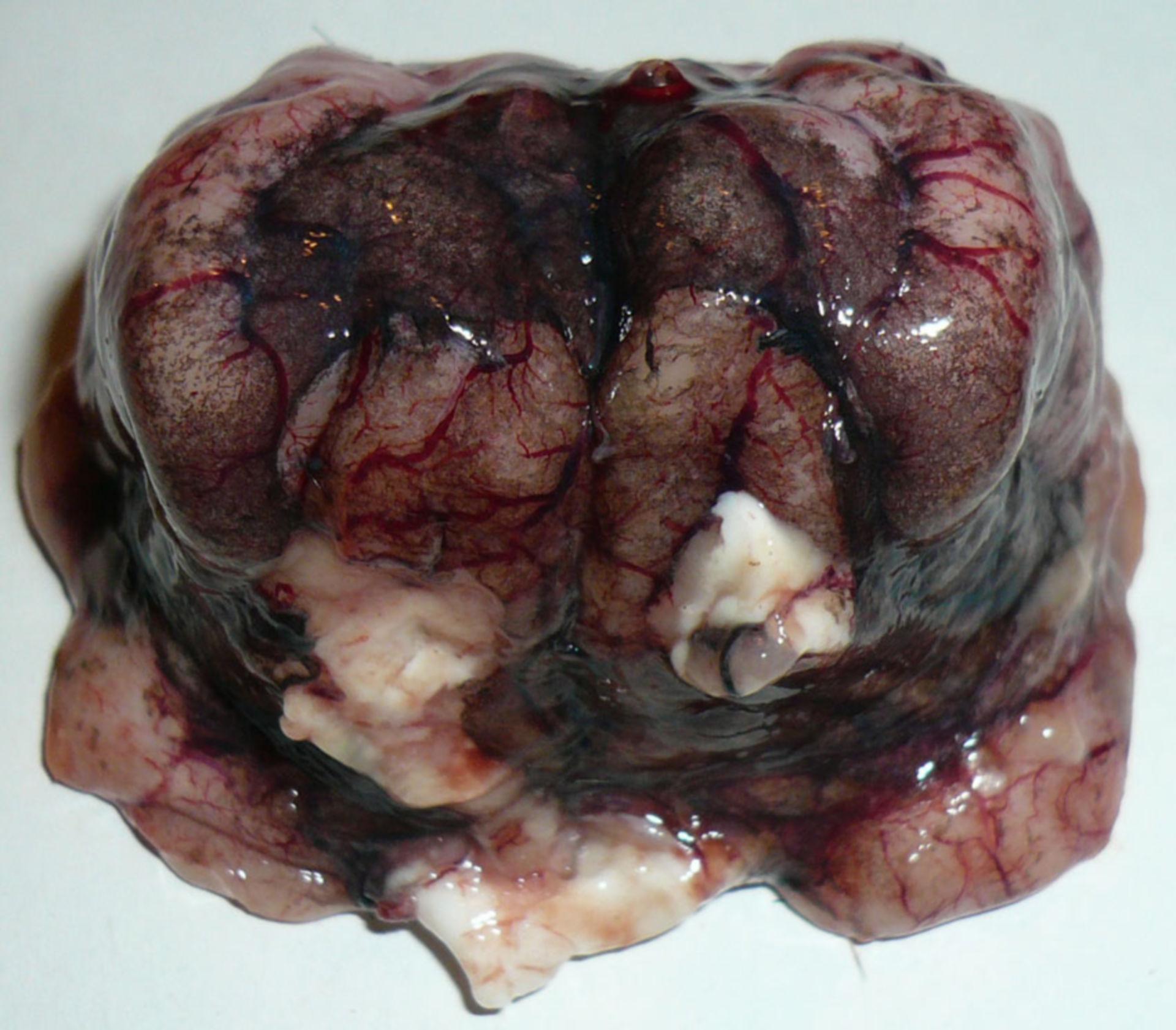 Gehirn Schaf Anthrax