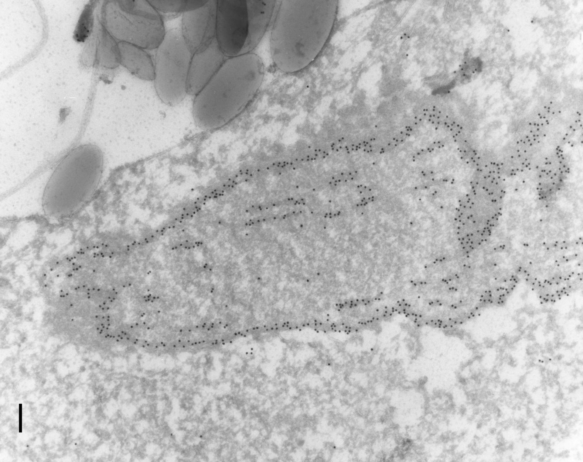 Paramecium tetraurelia (Nuclear envelope) - CIL:12090