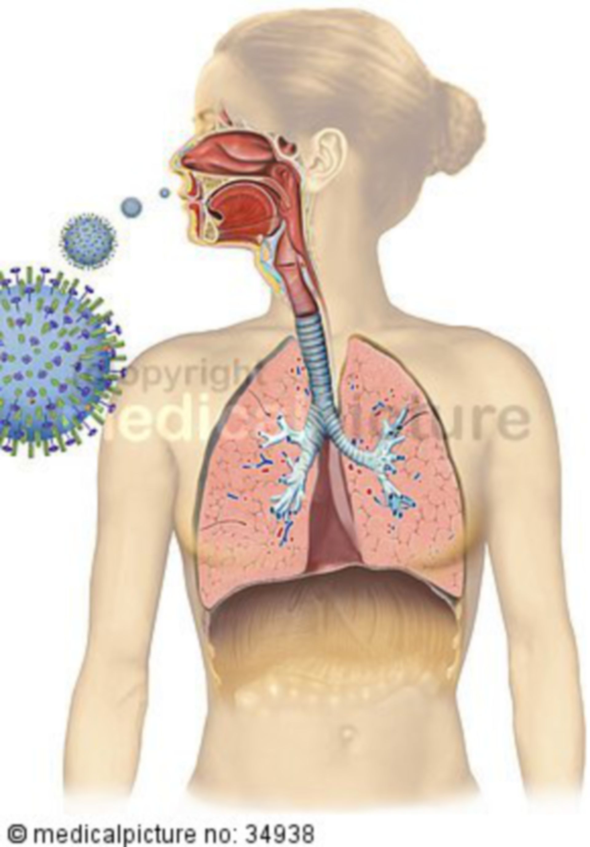 Influenza, common cold
