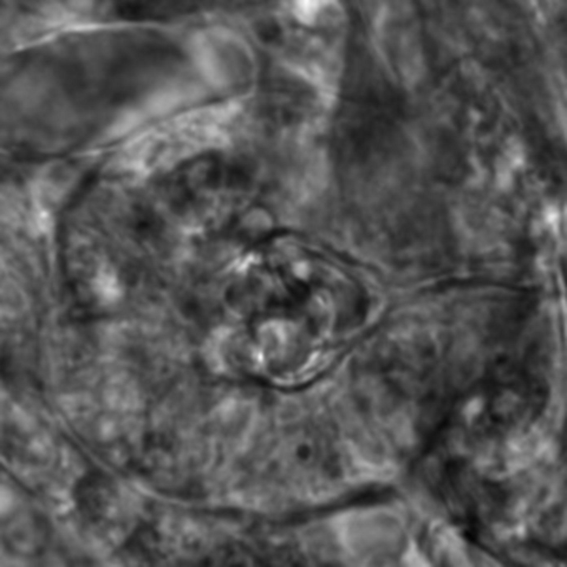 Caenorhabditis elegans - CIL:2593
