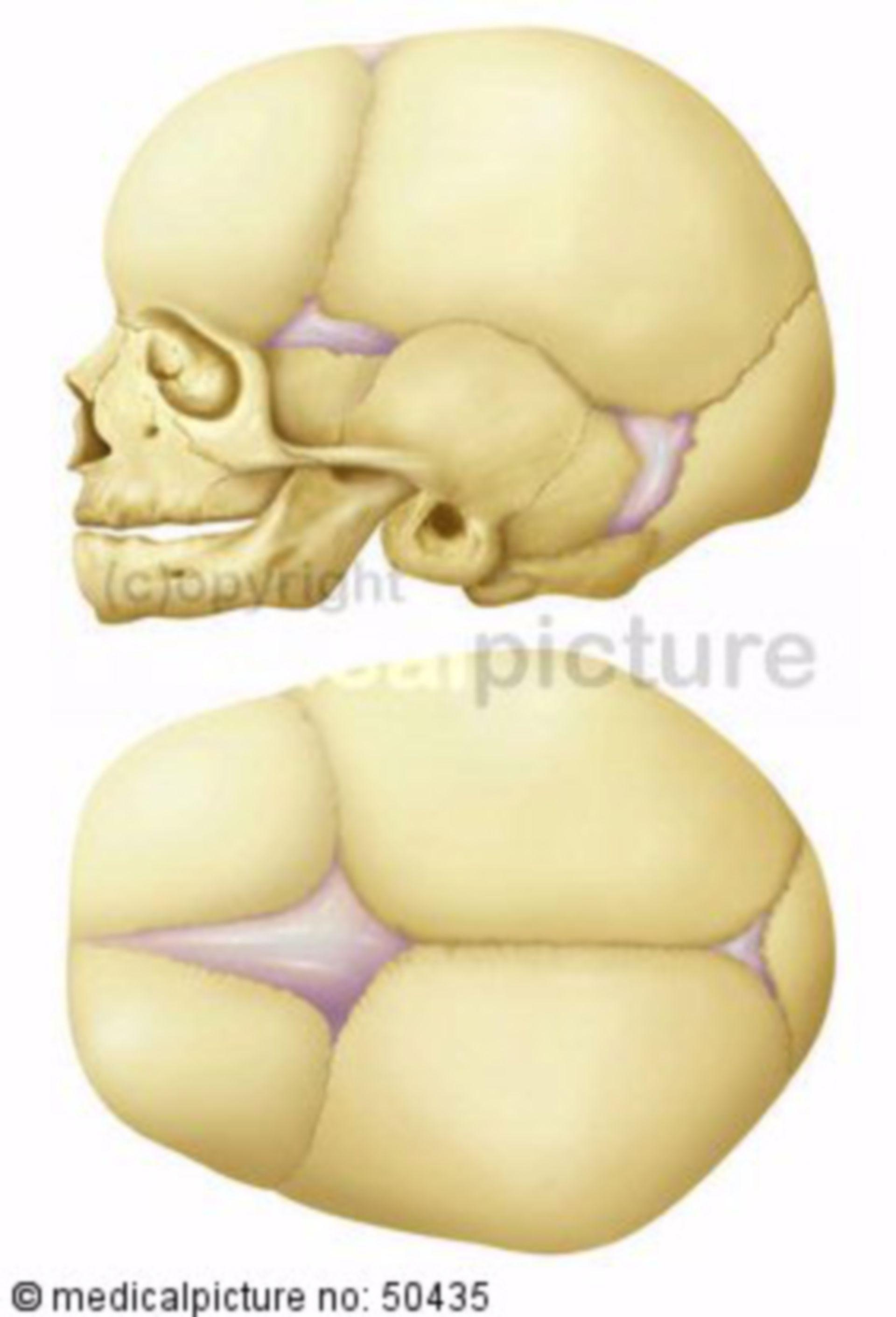 Cranio di un neonato