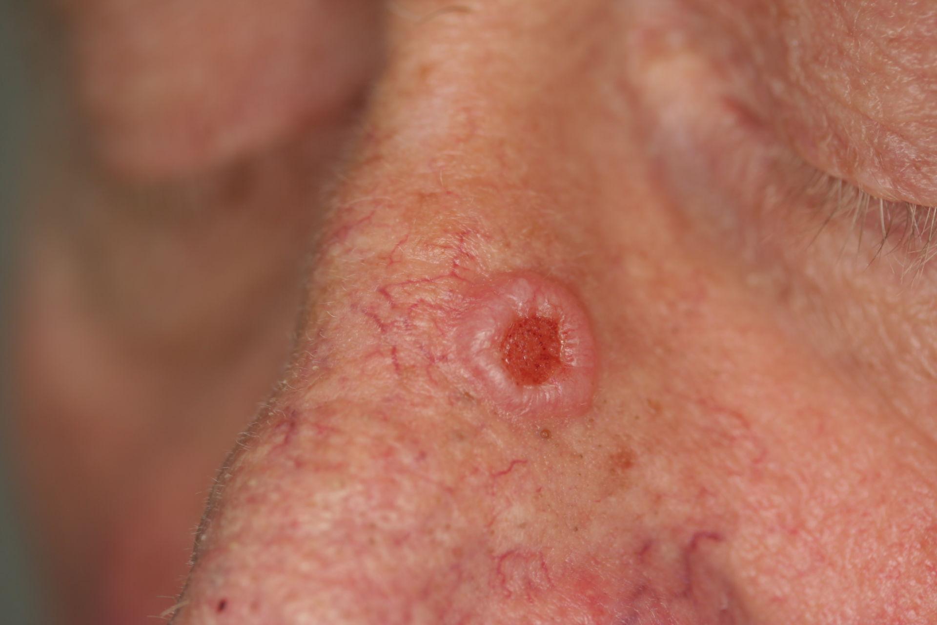 Carcinoma basocellulare nodulare