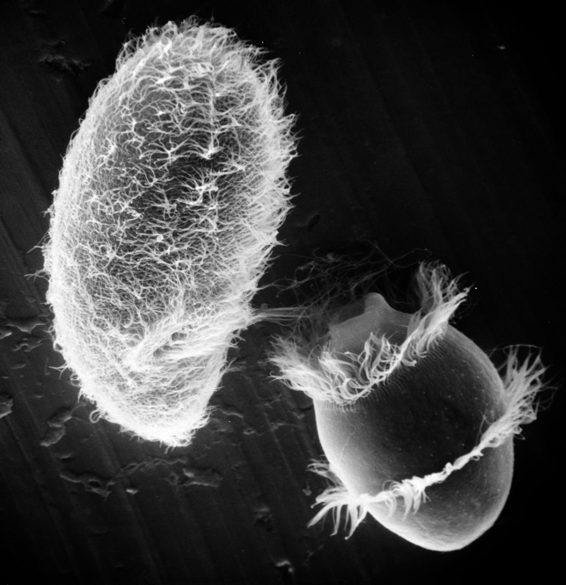 Paramecium sp. (superficie cellulare) - CIL:21993