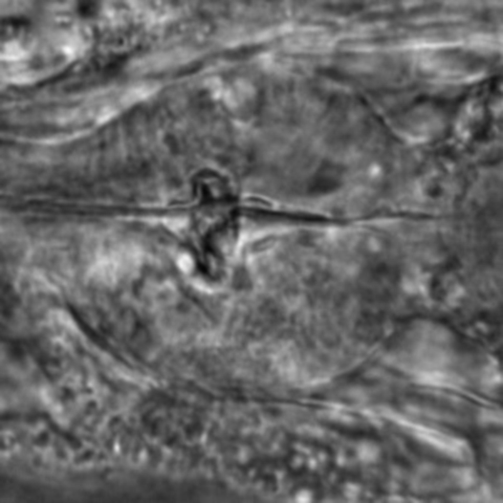 Caenorhabditis elegans - CIL:1775