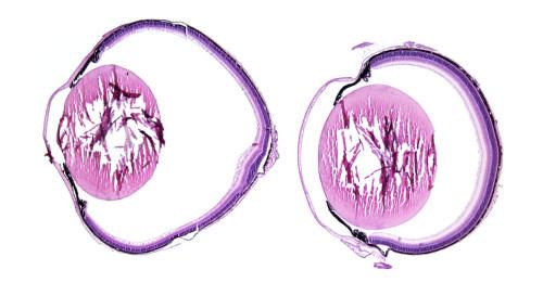 Bei Verlust des Rezeptors LRP2 verlängert sich der Augapfel (links) im Vergleich zu einem Auge mit intaktem LRP2-Rezeptor (rechts), histologische Präparate von Mäusen. © MDC
