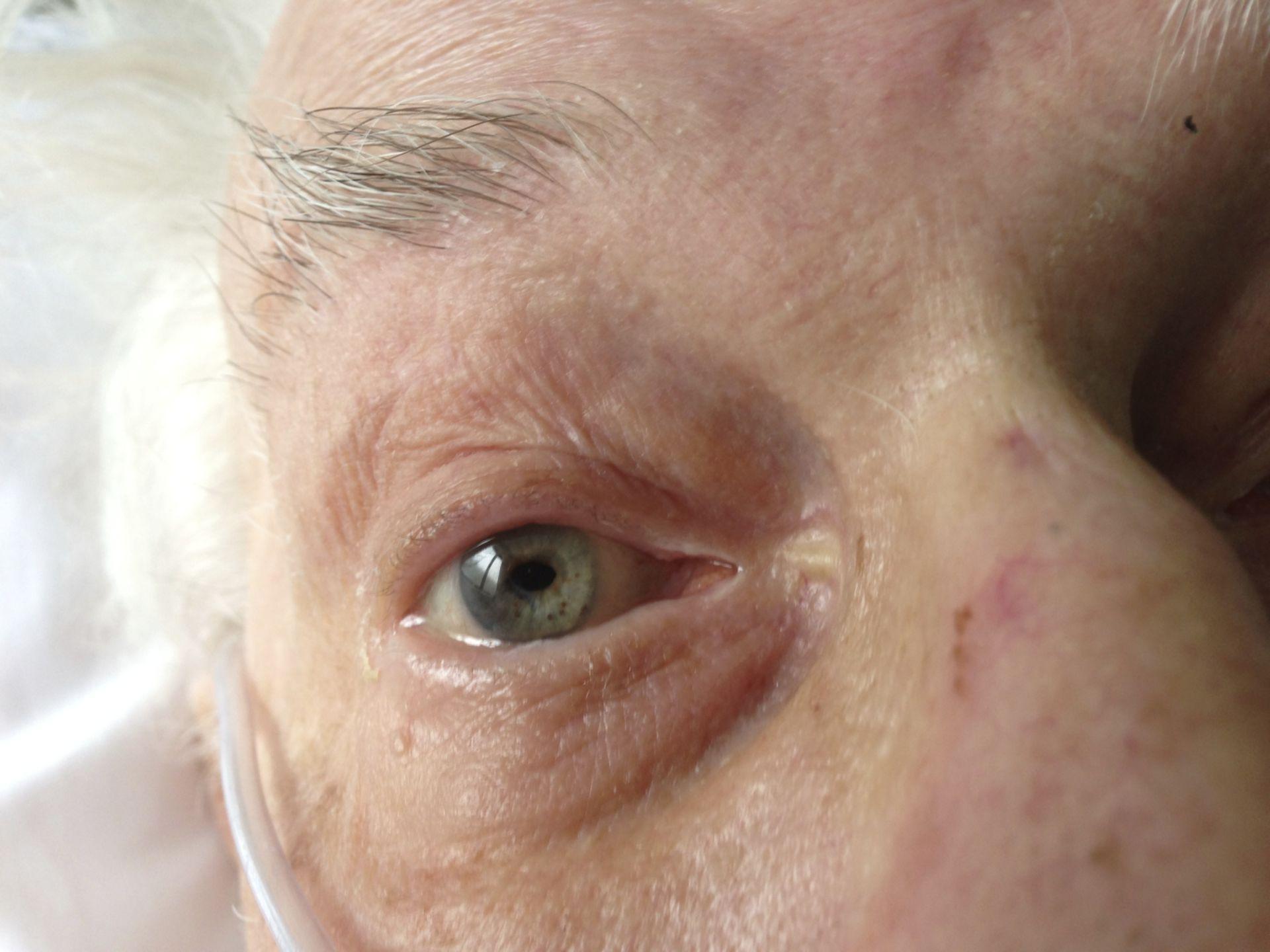 Pupilla ellittica