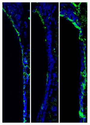 Regulierung der AQP4-Expression in ependymalen Zellen der ventrikulären Zone durch Modulatoren von GABAA-Rezeptoren. Kontrolle (links), Hemmung (Mitte) und Aktivierung (rechts). © Foto: Ruprecht-Karls-Universität Heidelberg