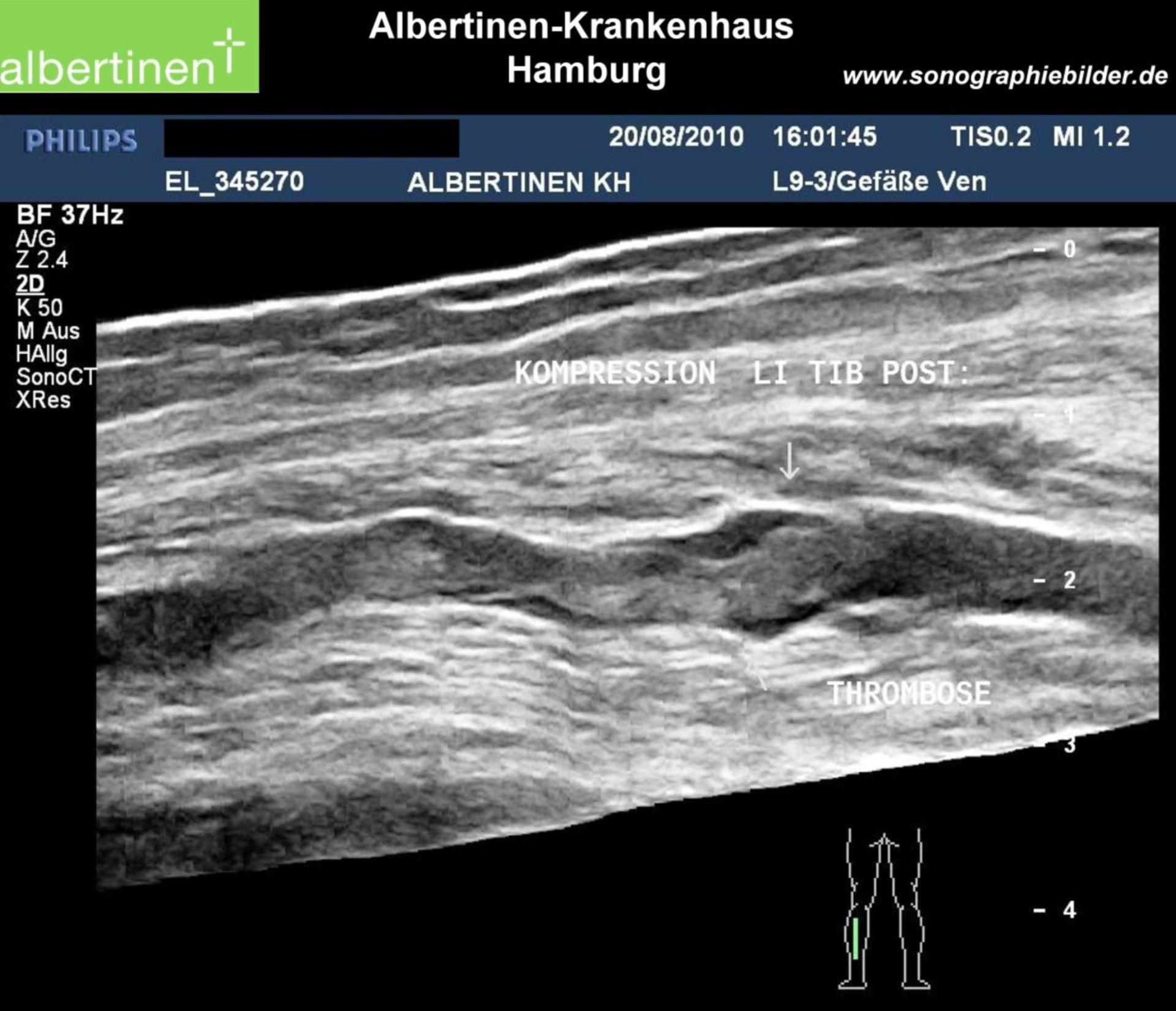 Trombosi della vena della gamba