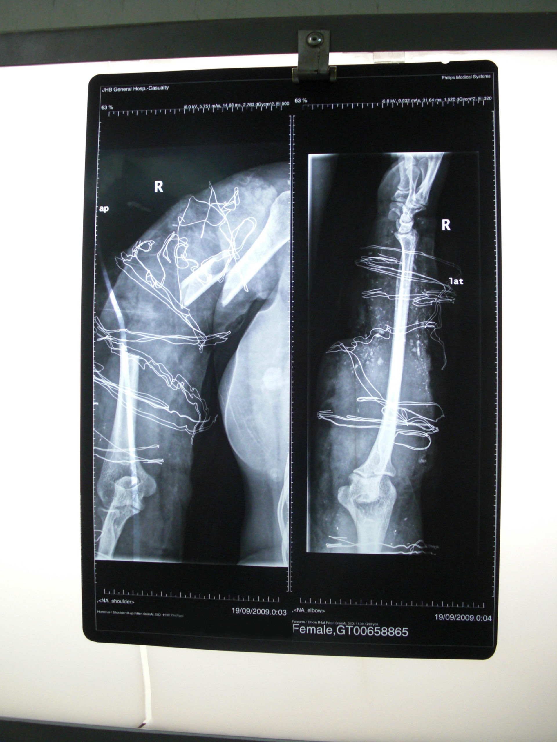 Comminuted fracture of the upper arm