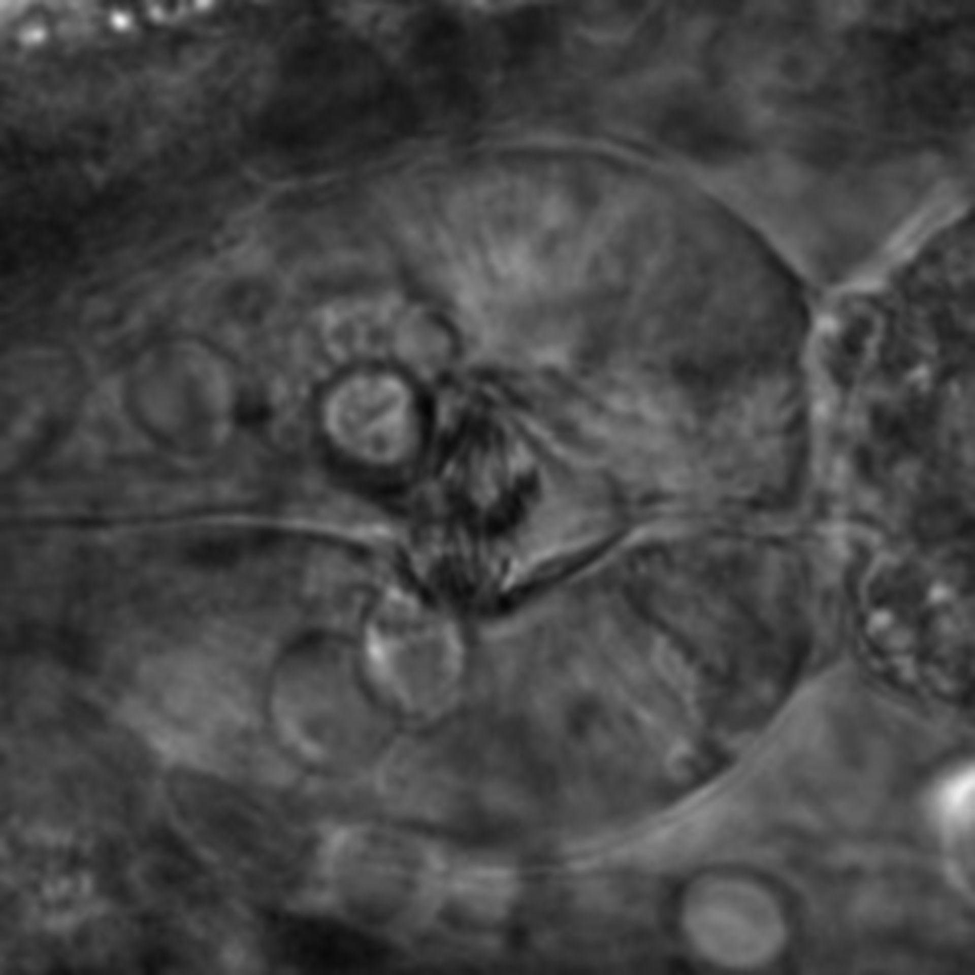 Caenorhabditis elegans - CIL:2213