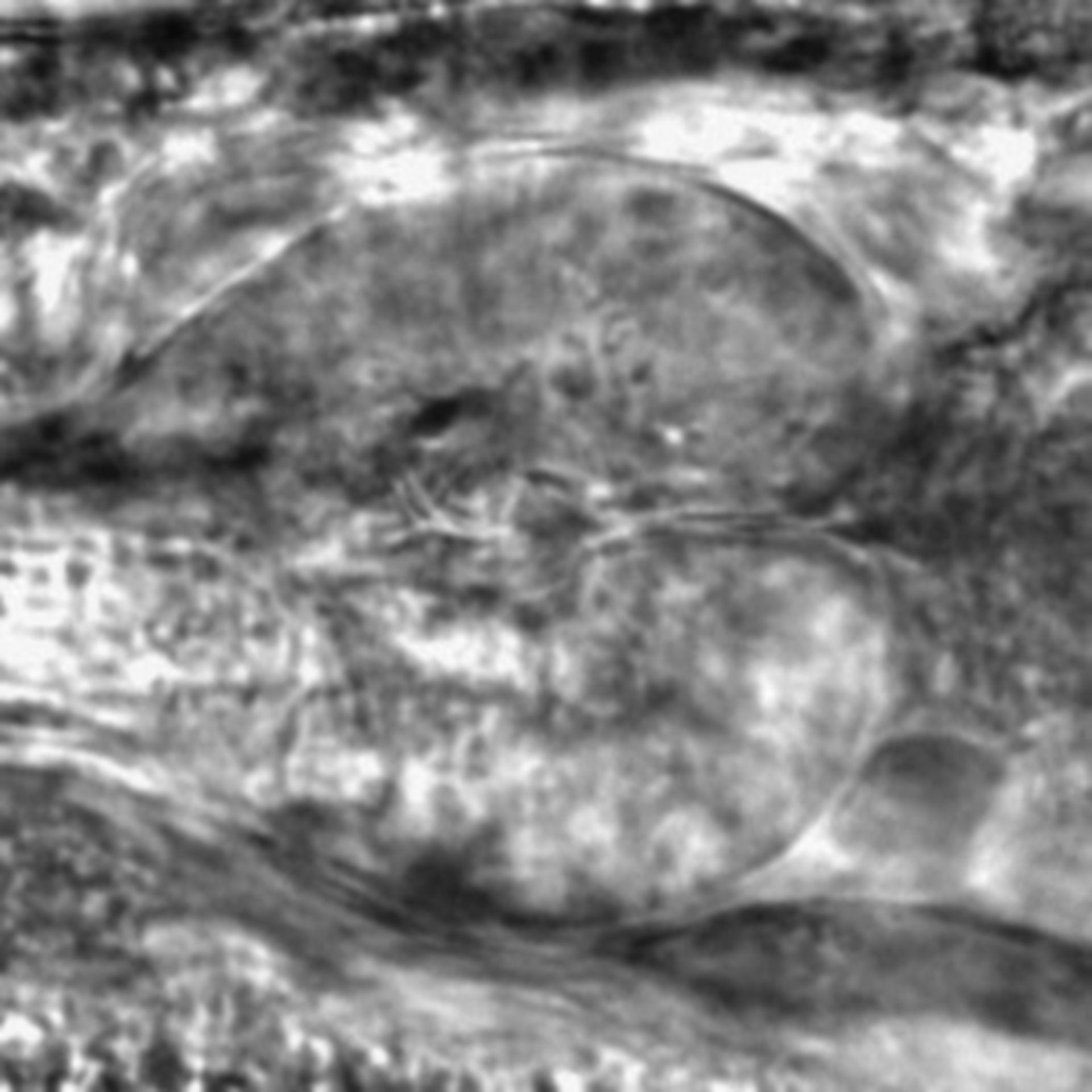 Caenorhabditis elegans - CIL:2239