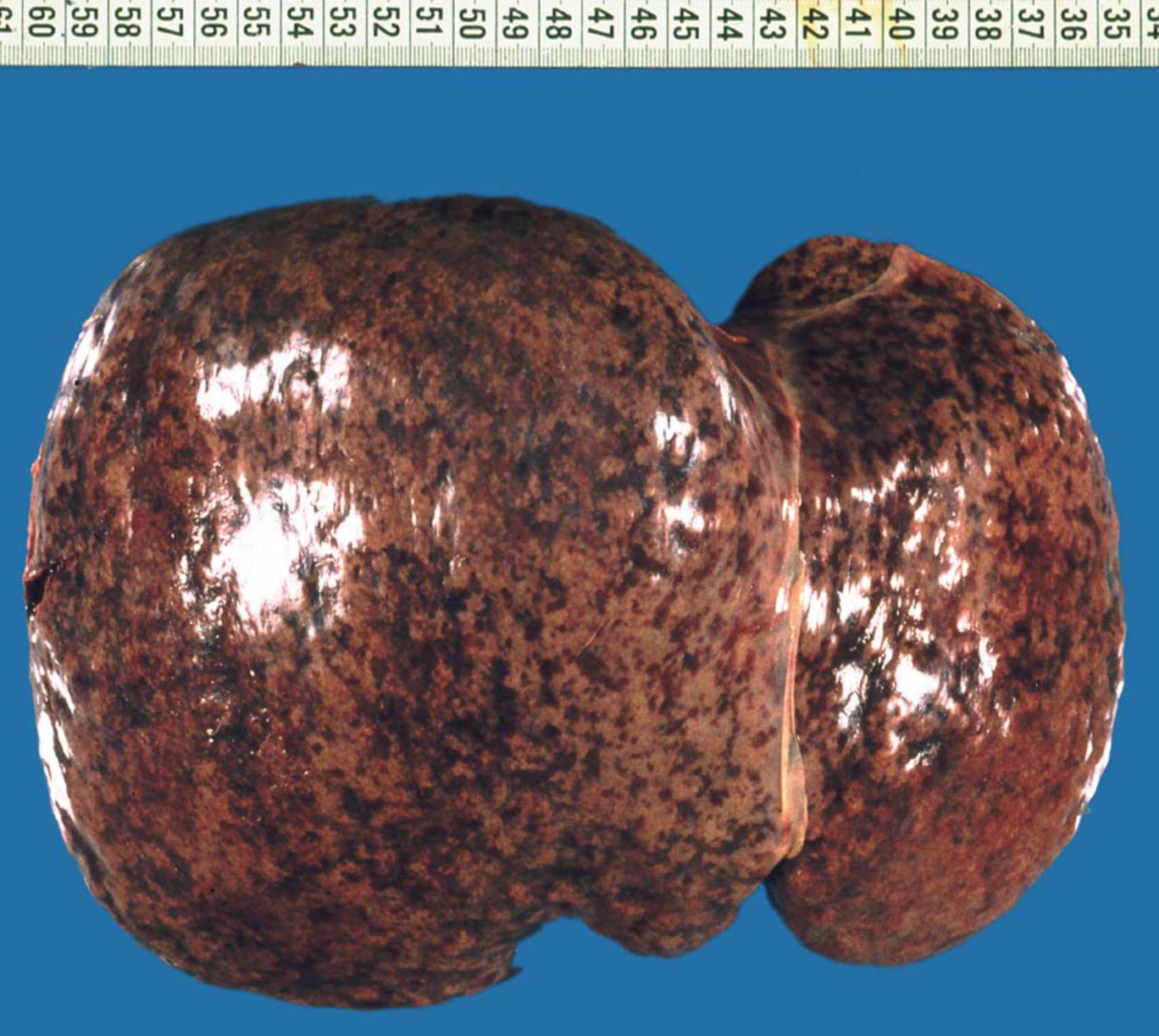 Hepatitis B (Präparat, Leber)