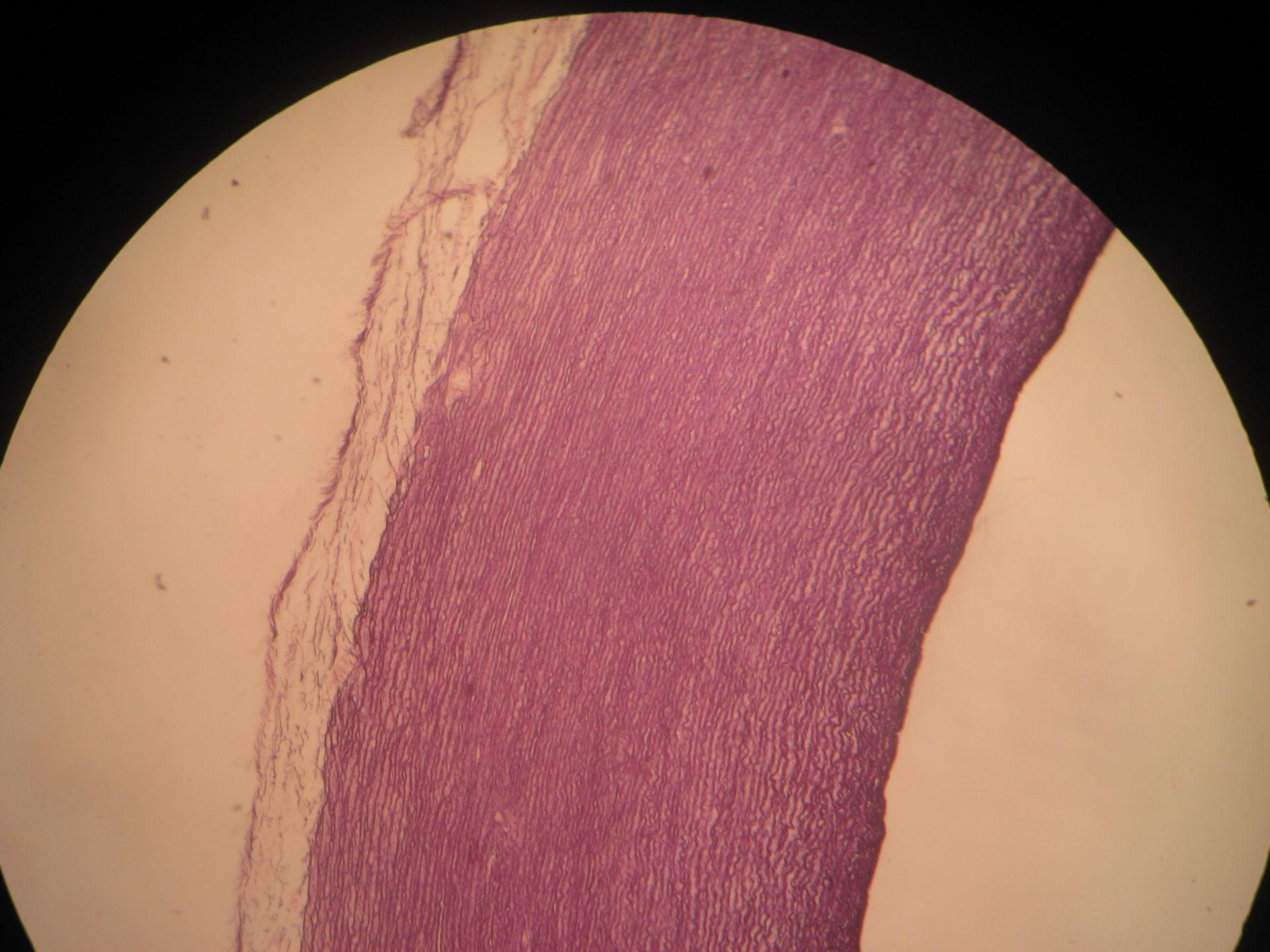Aorta 3- Pig