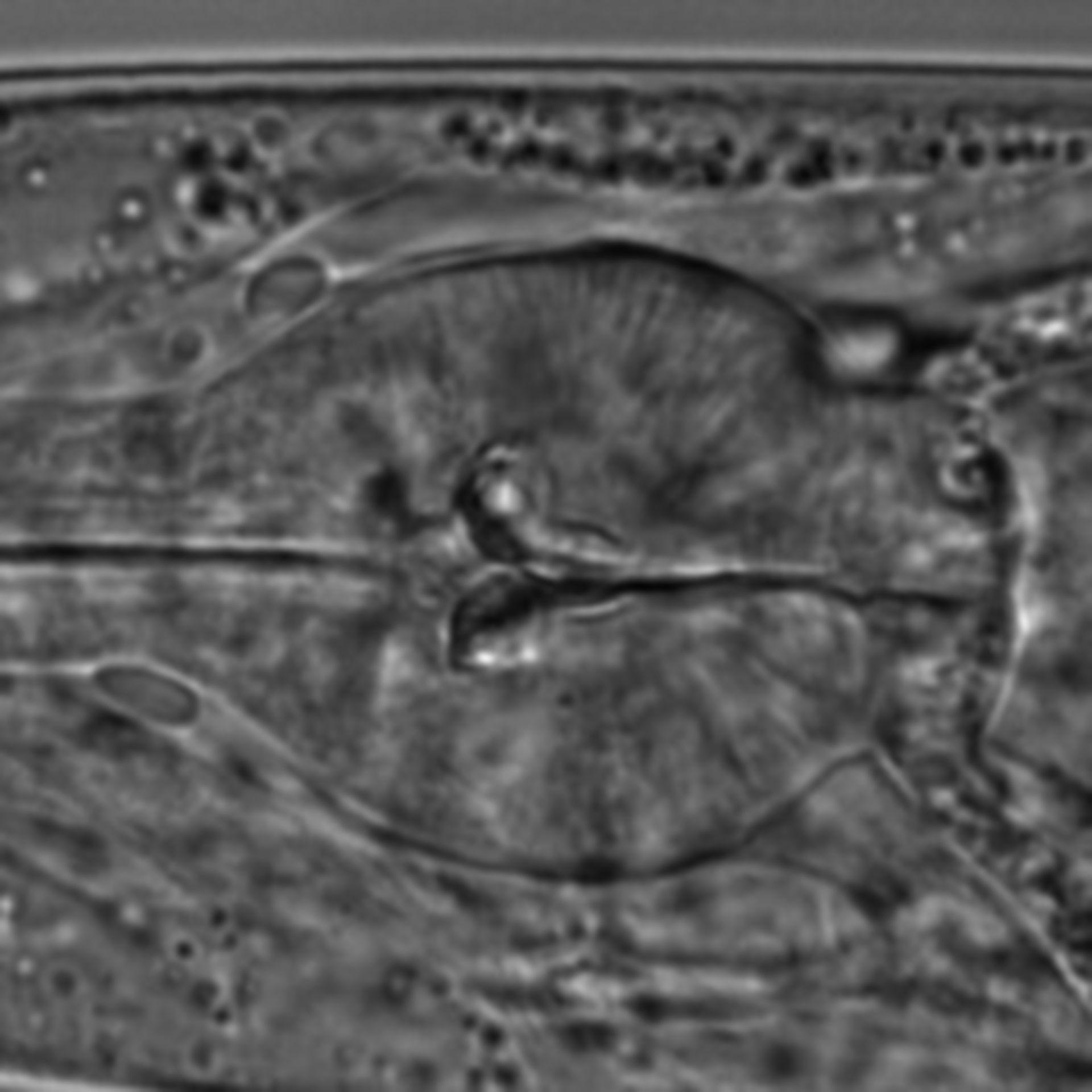 Caenorhabditis elegans - CIL:1596