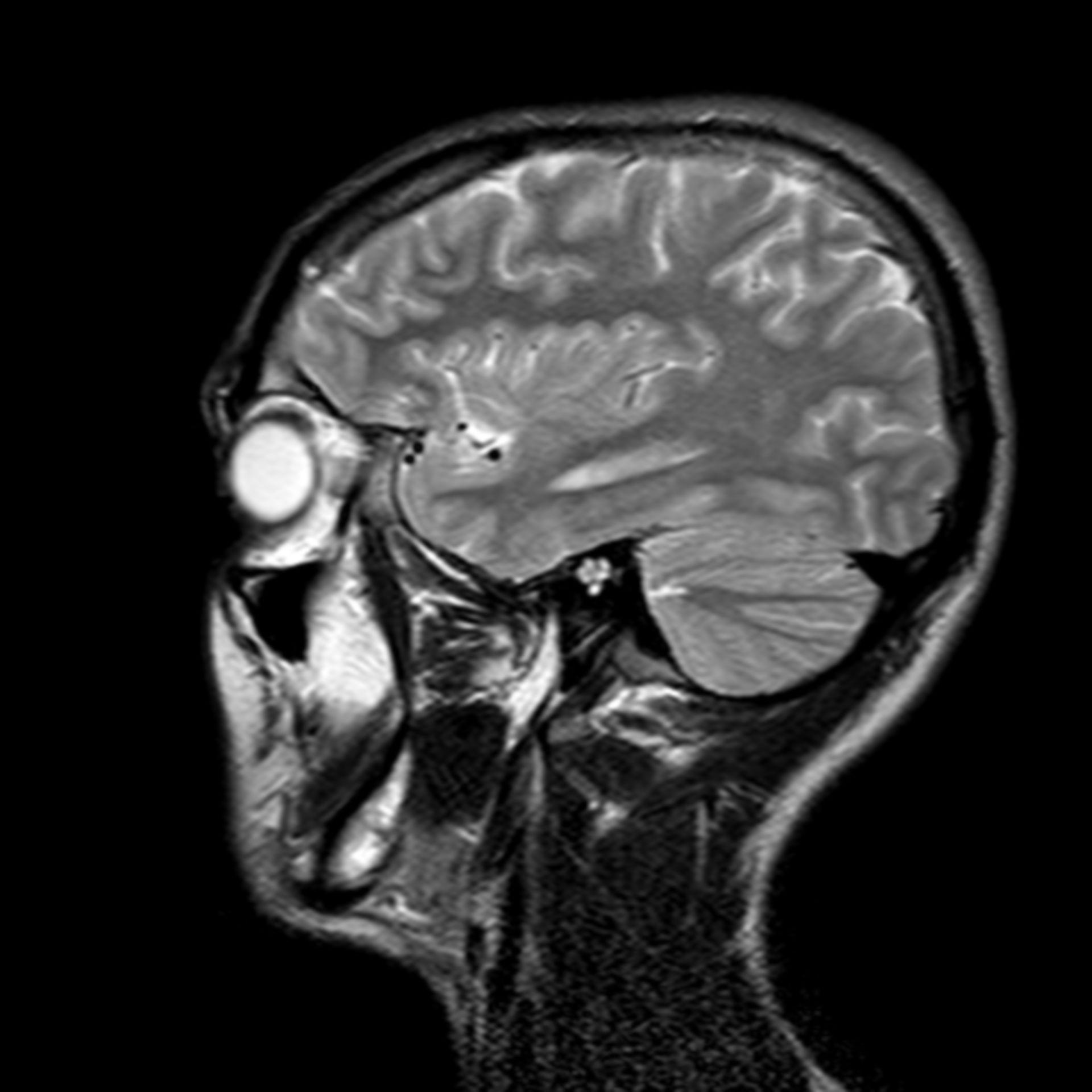 (25/34) MRT Schädel in Sagittalebene, T₂‐gewichtet