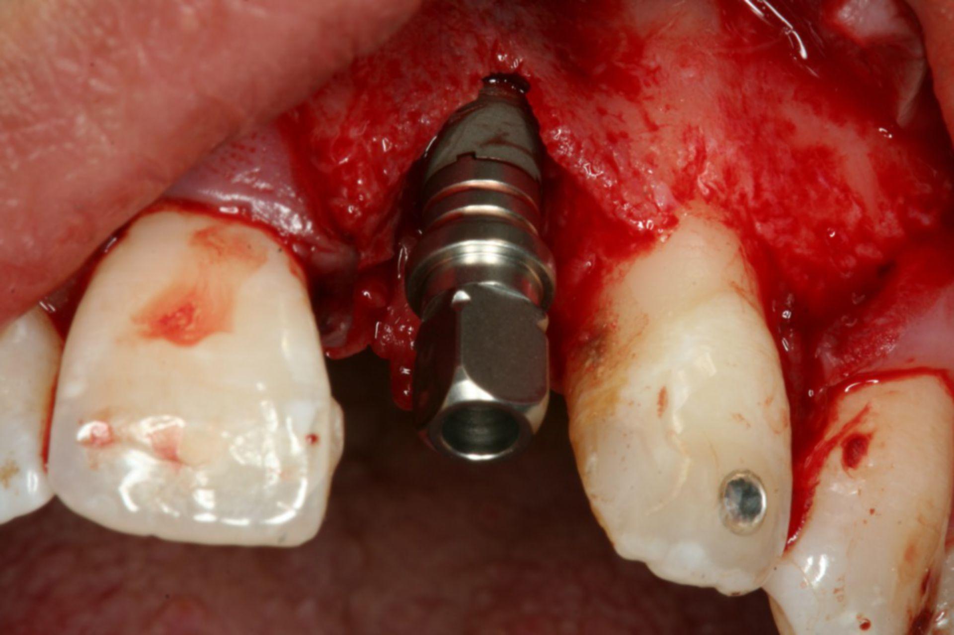 Vite inpianto dentale