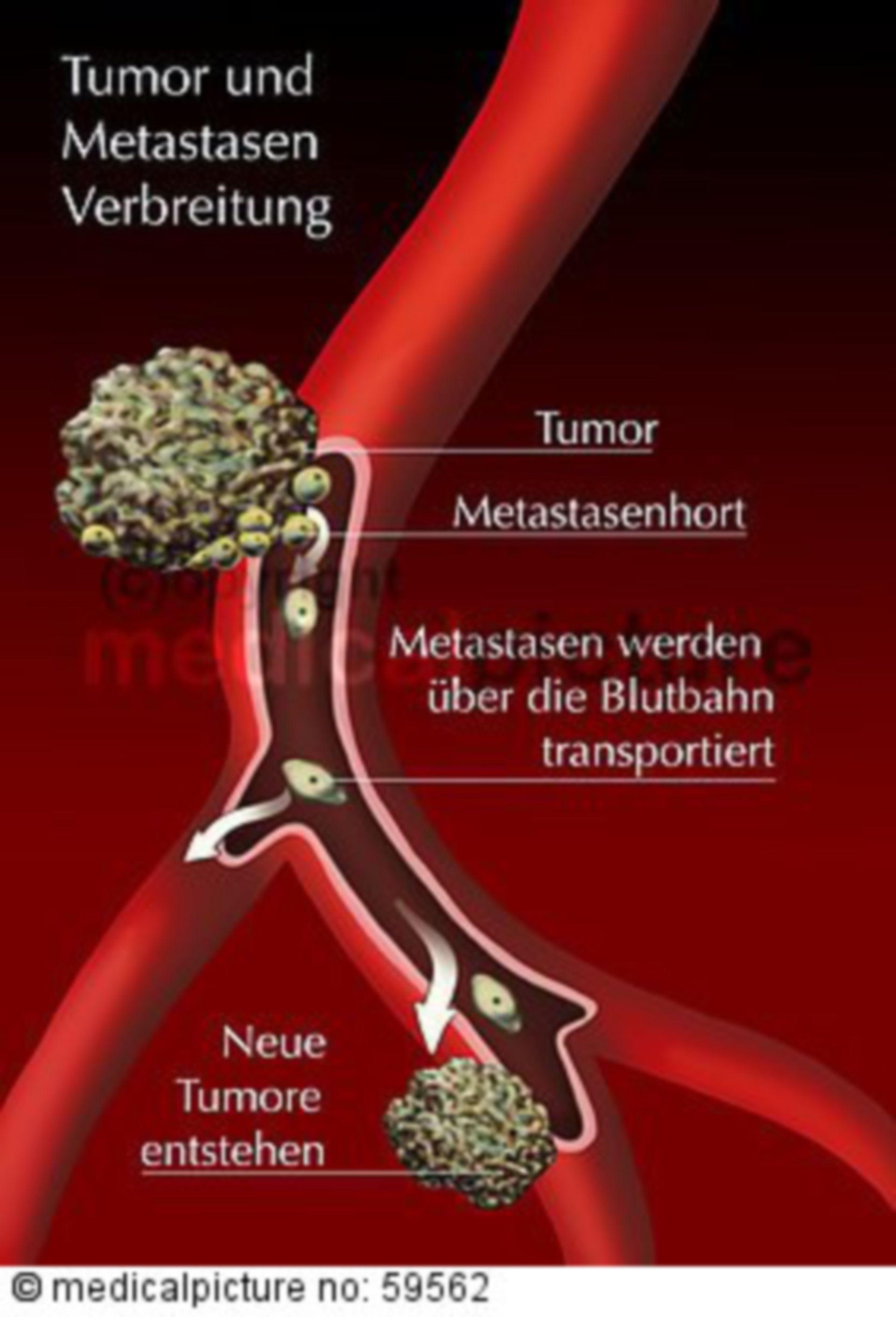 Metastasierungswege
