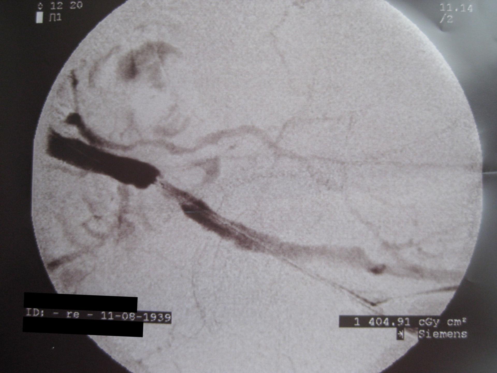 Profound stenosis of the iliac artery - DSA