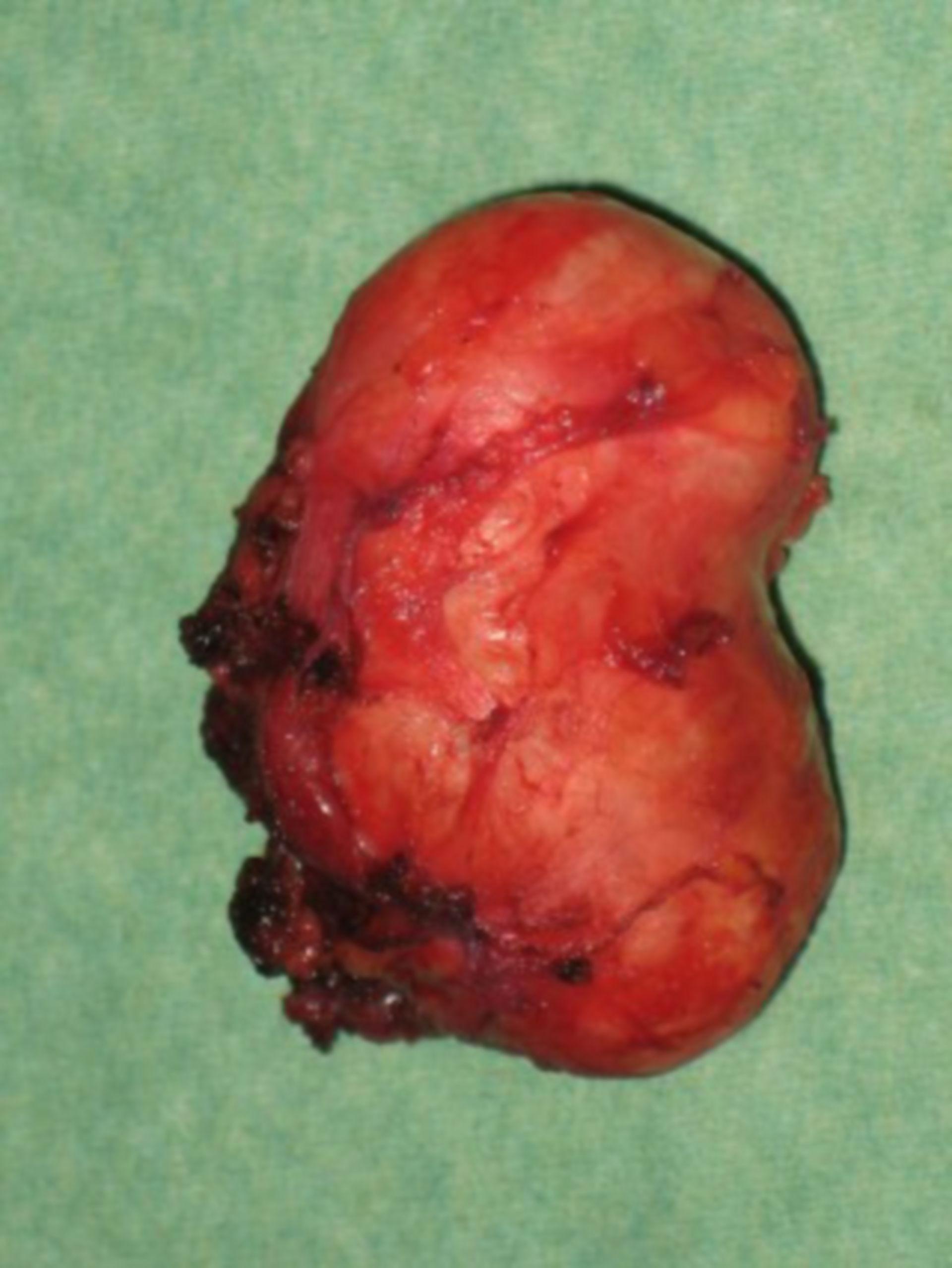 Operazione ghiandole salivari (5)