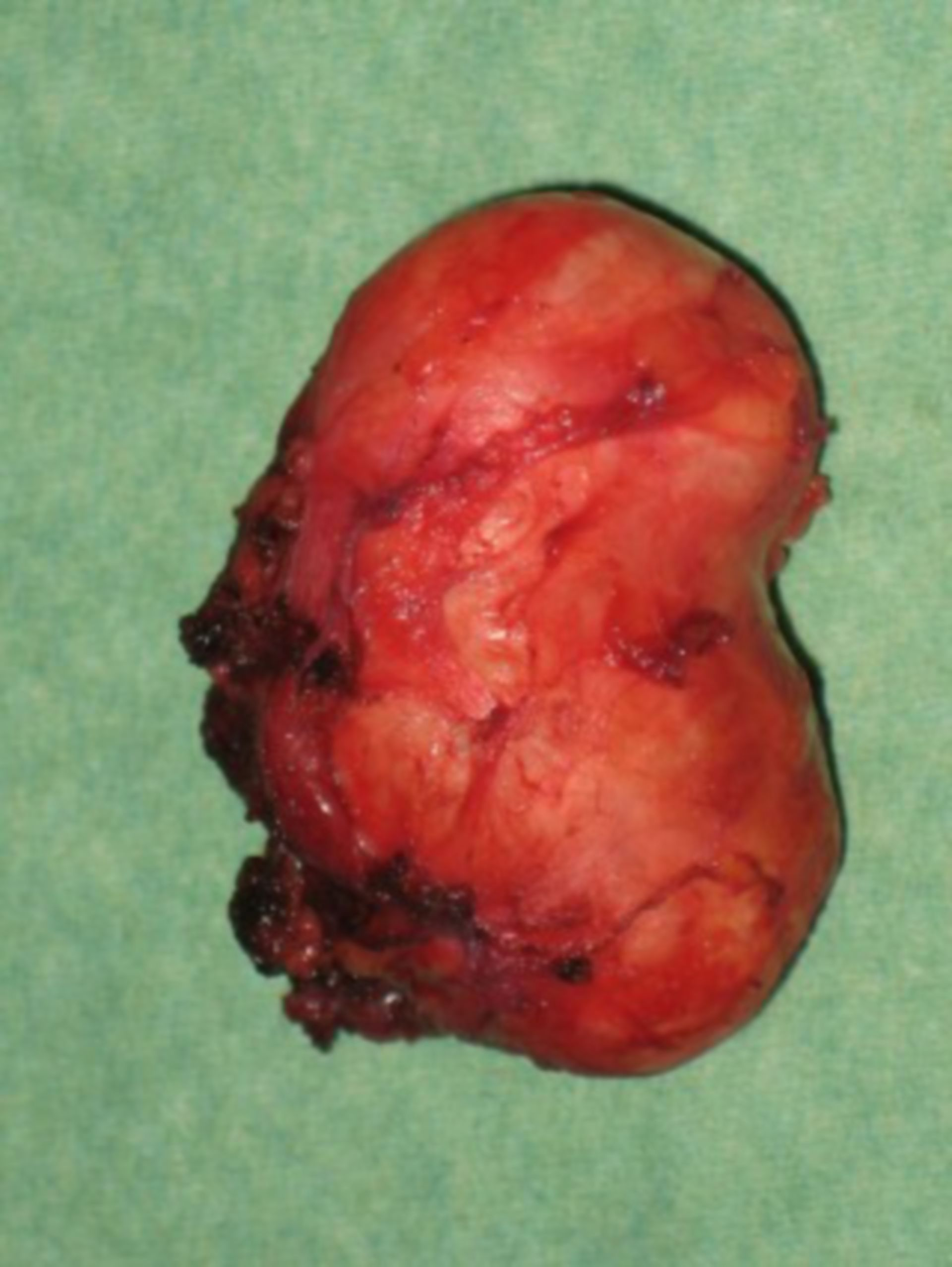 Surgery on the salivary gland (pic5)