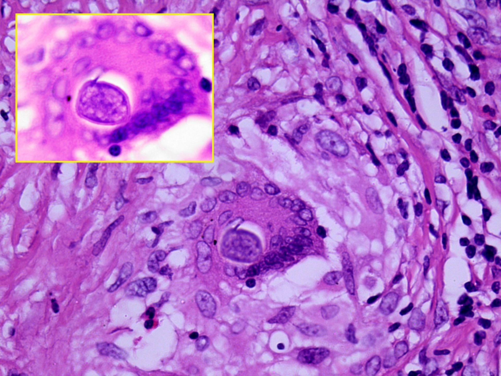 Coccidiodomycosis organism