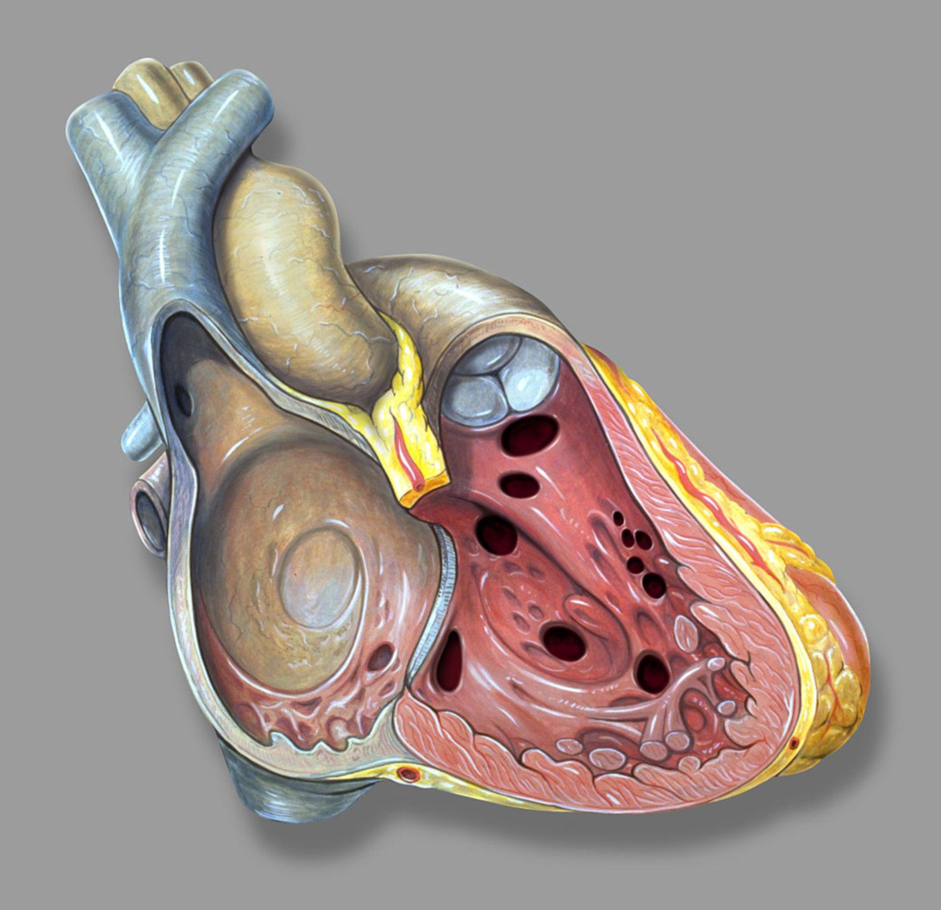 Ventricular septal defects (VSD, Scheme)