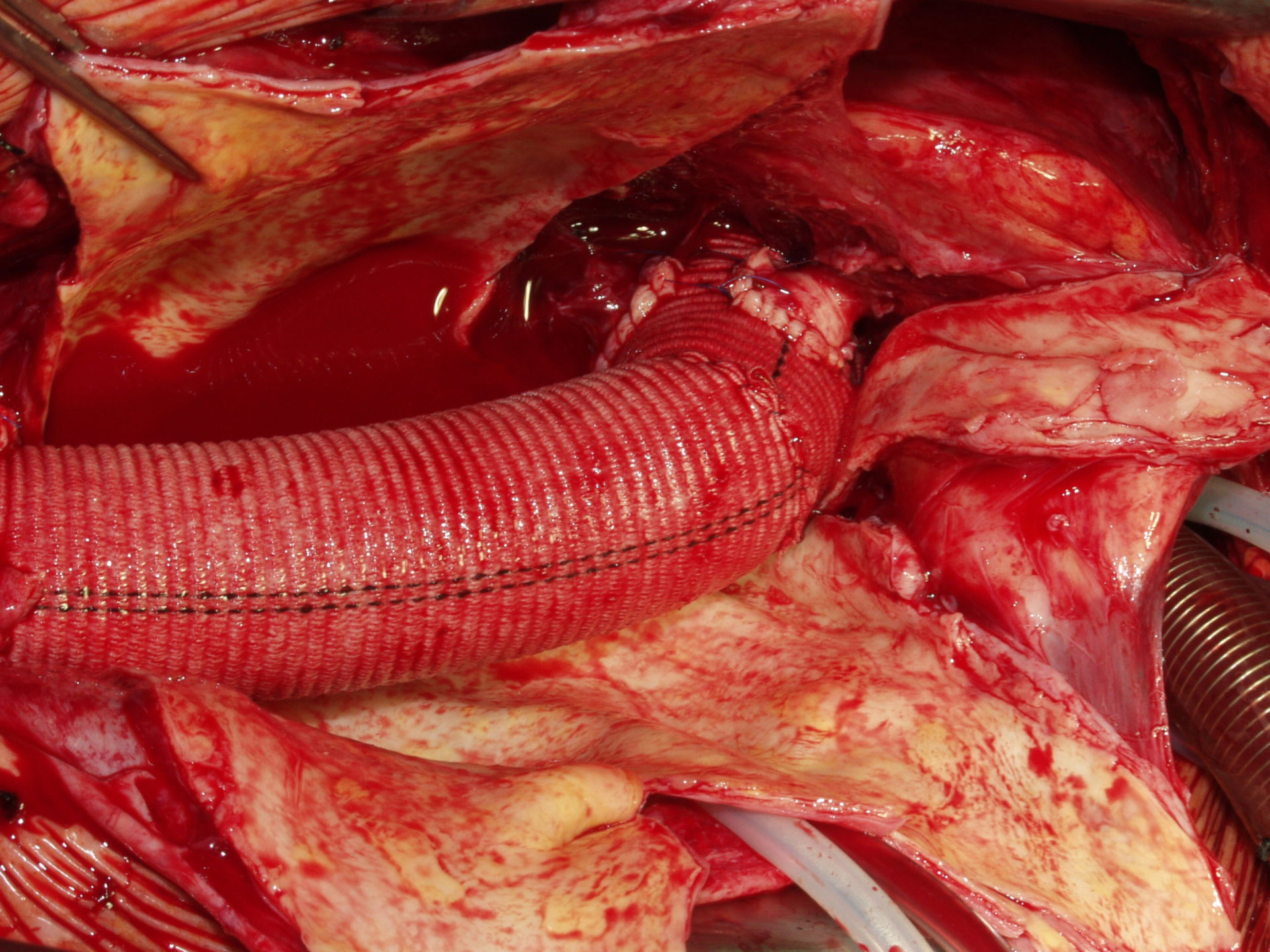 Reconstruction of aortic valve after 'David' (fig. 1e)