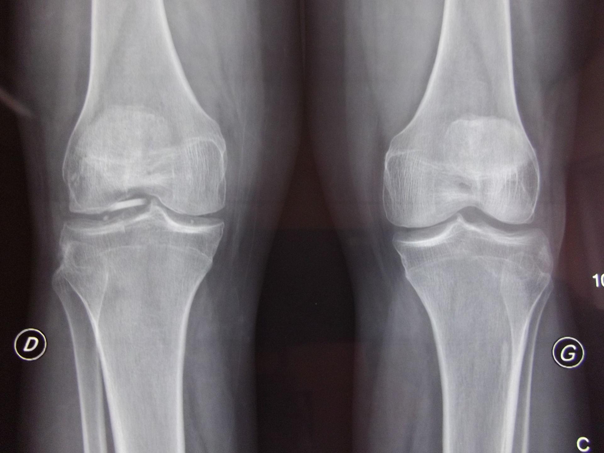 Corpo estraneo di metallo nel ginocchio destra
