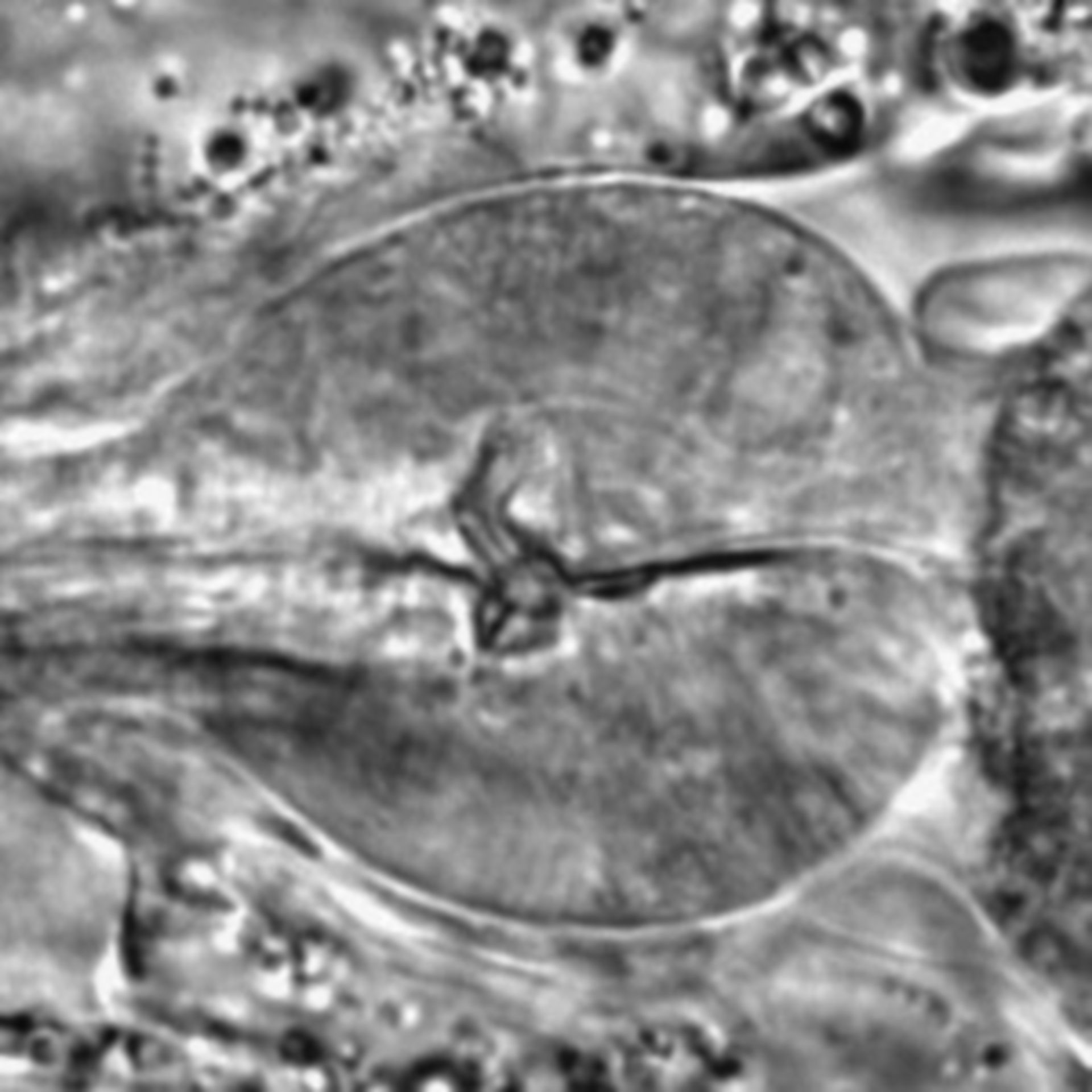 Caenorhabditis elegans - CIL:1696