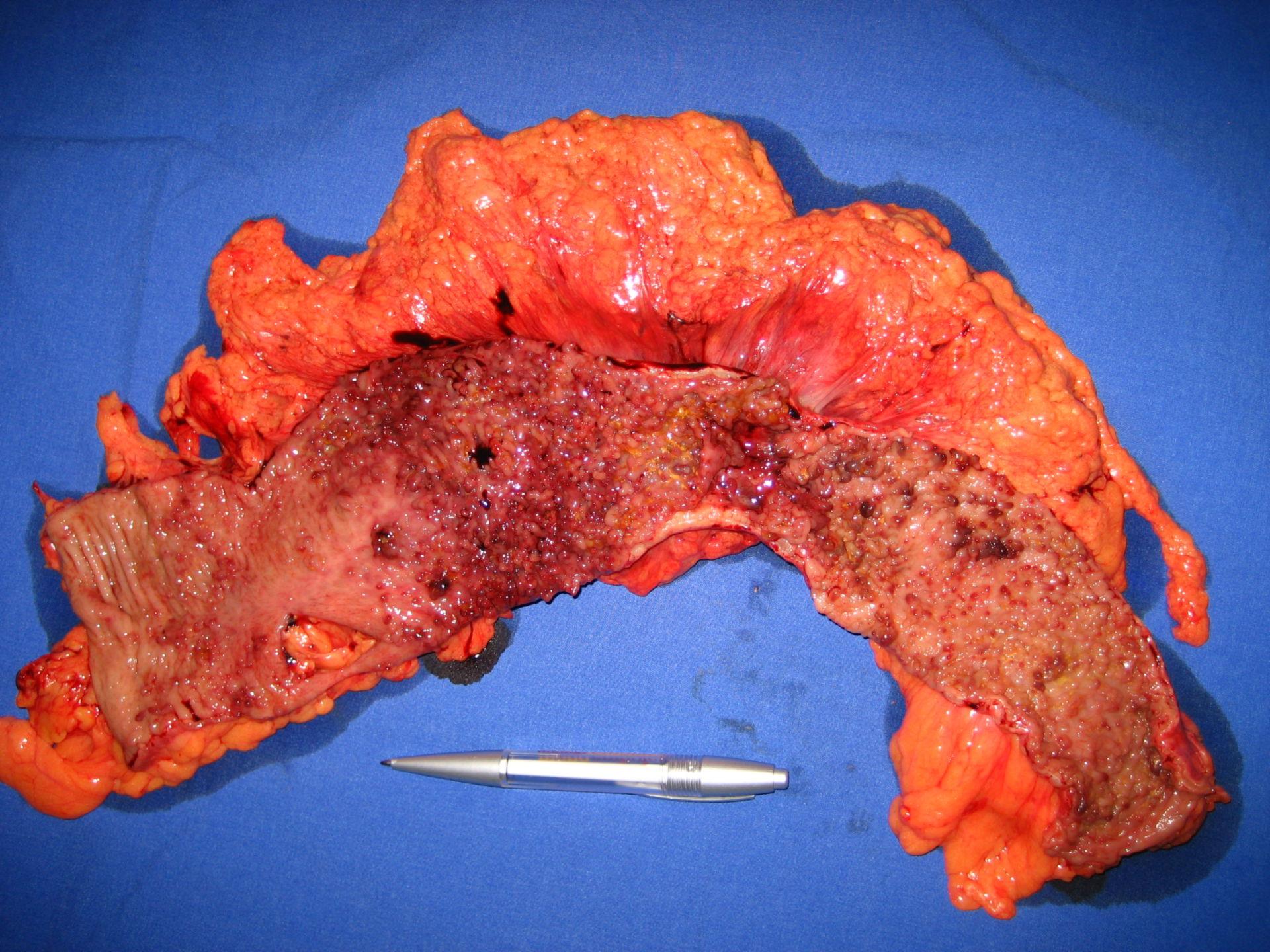 Crohn's disease - large intestines