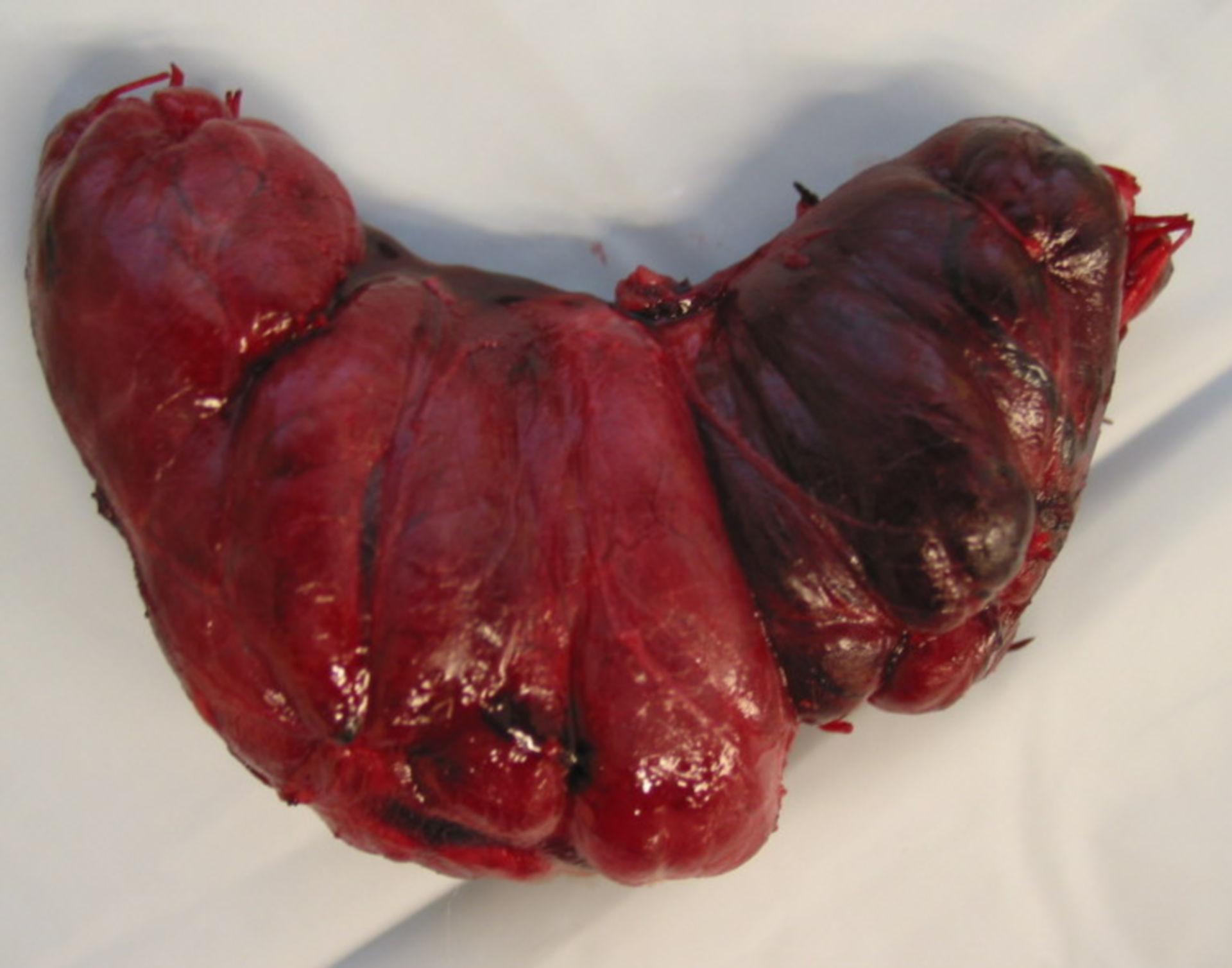 Tiroidectomía (paciente con enfermedad de Graves)