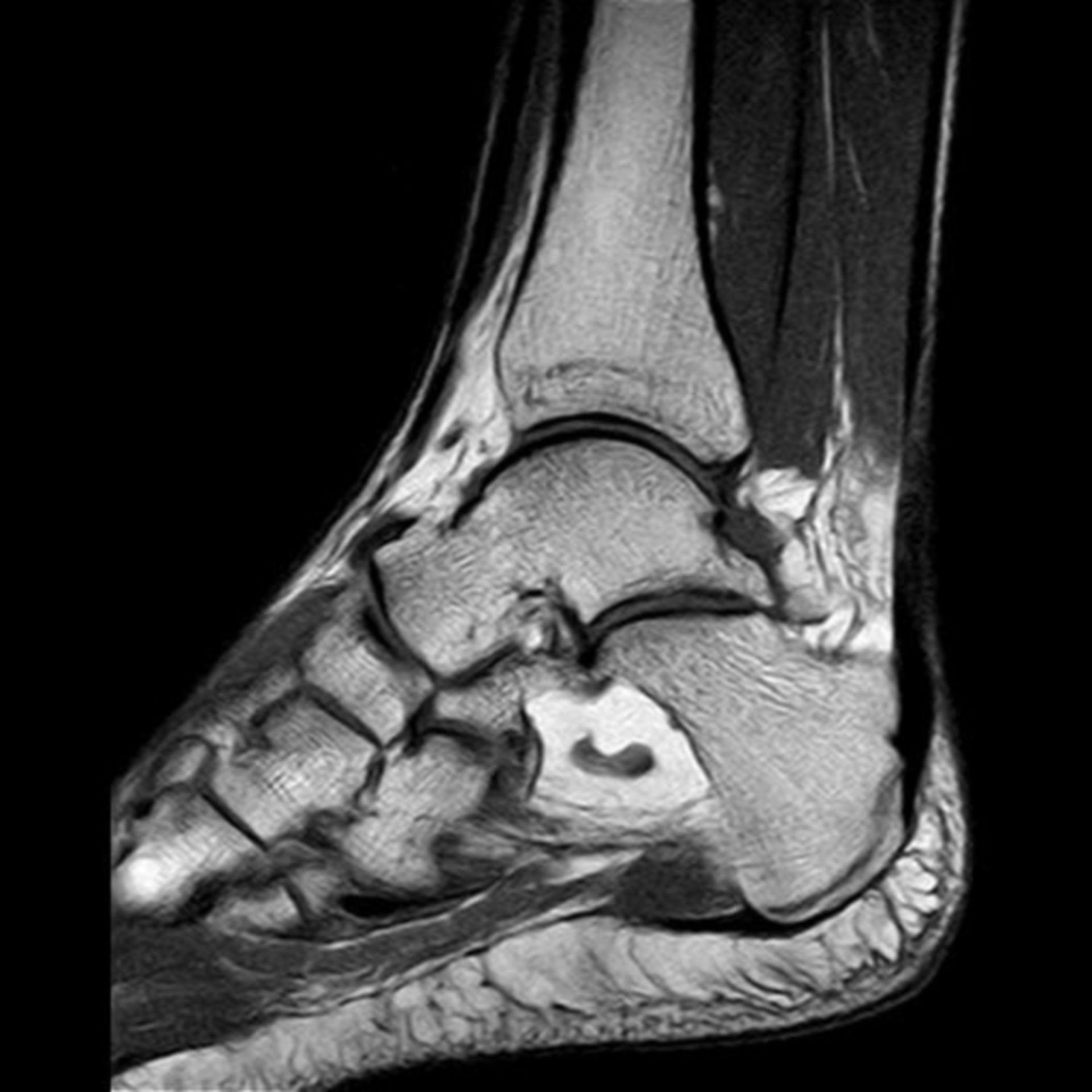 IRM del calcaneo T1 sag S4 I10