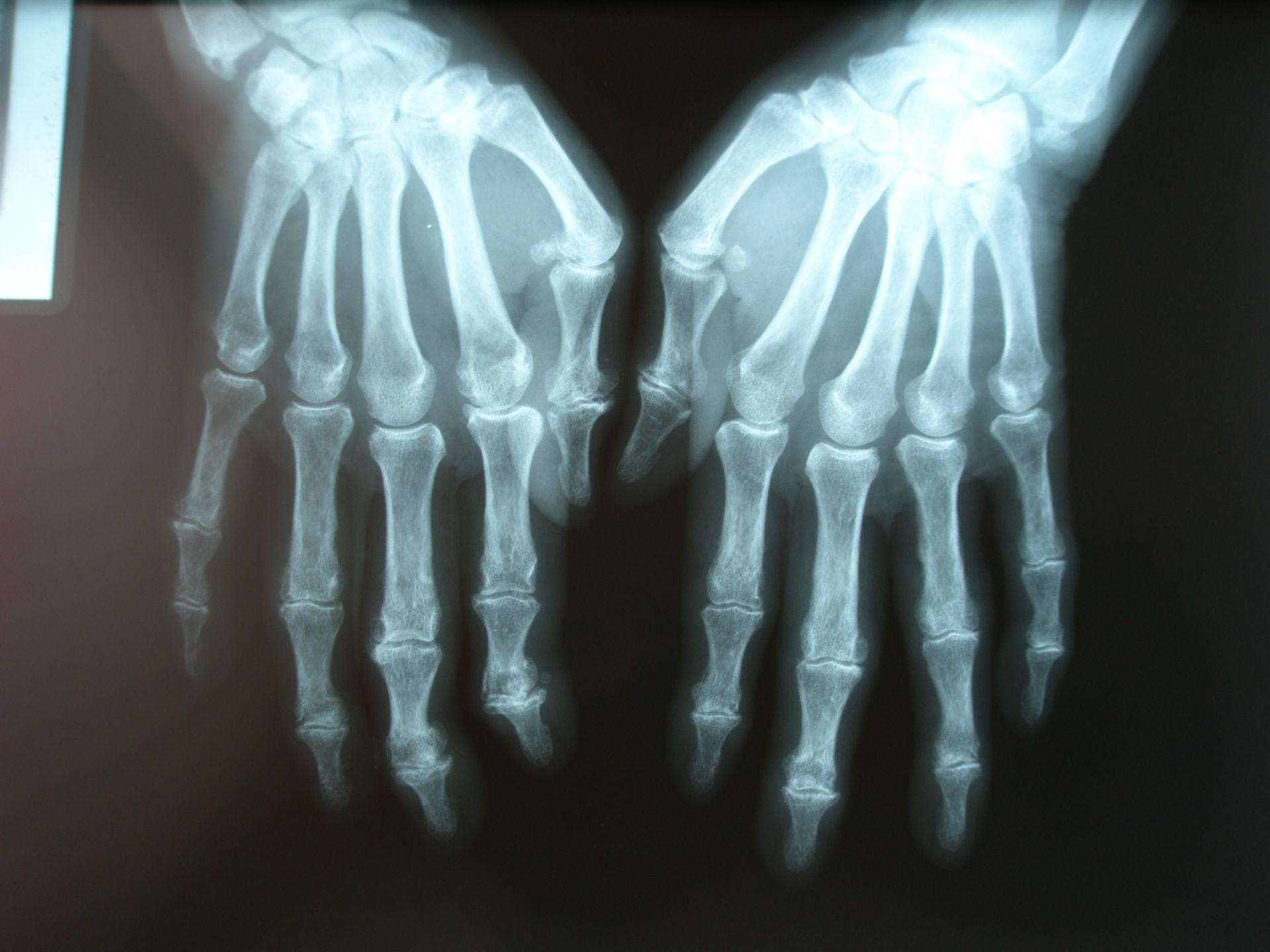 Arthrose in der Hand