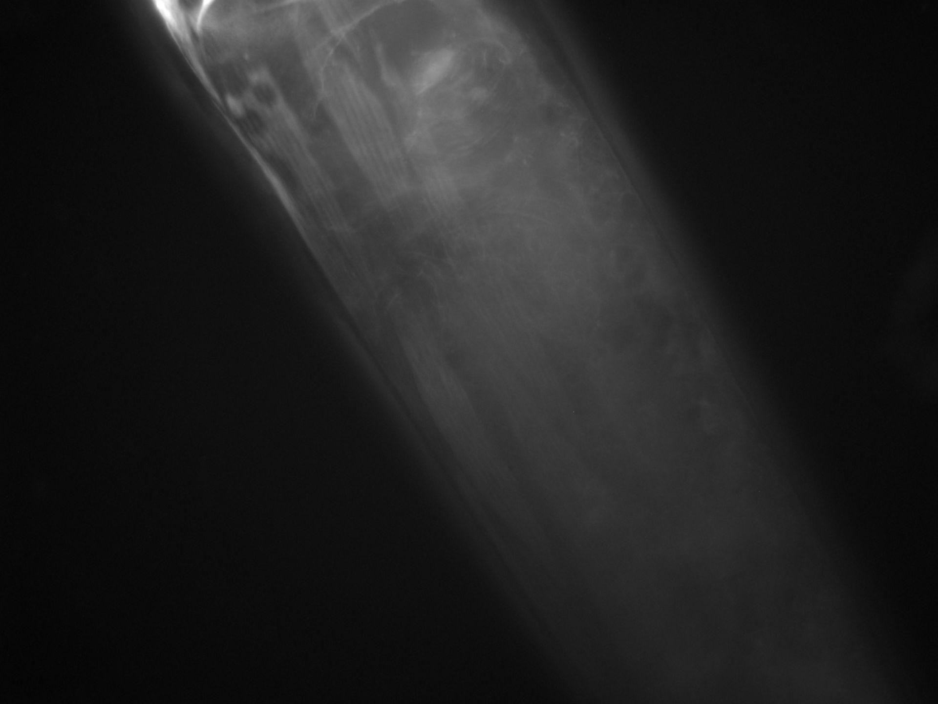 Caenorhabditis elegans (filamento di actina) - CIL:1294