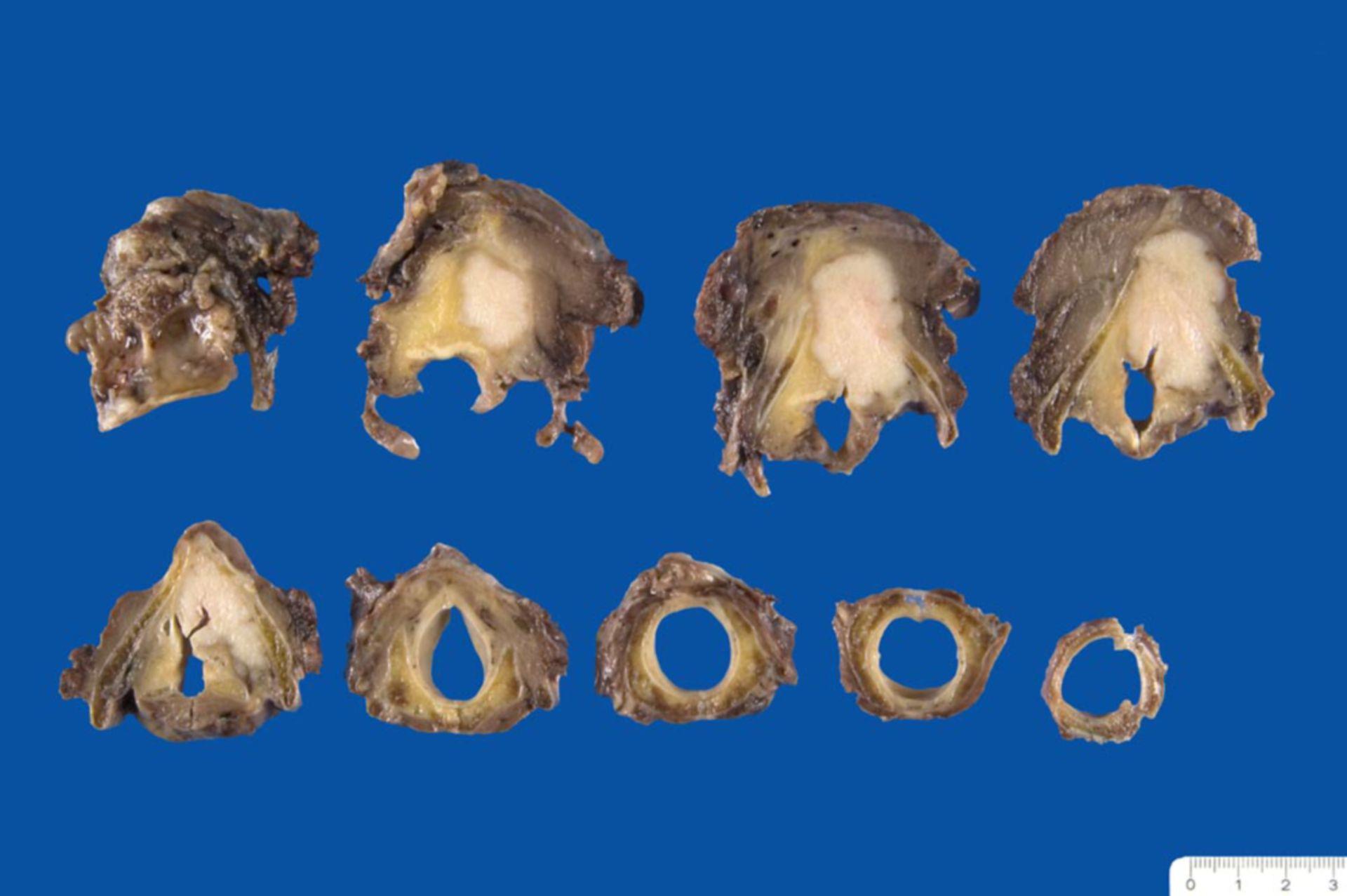 Glottic and supraglottic squamous cell carcinoma of the larynx