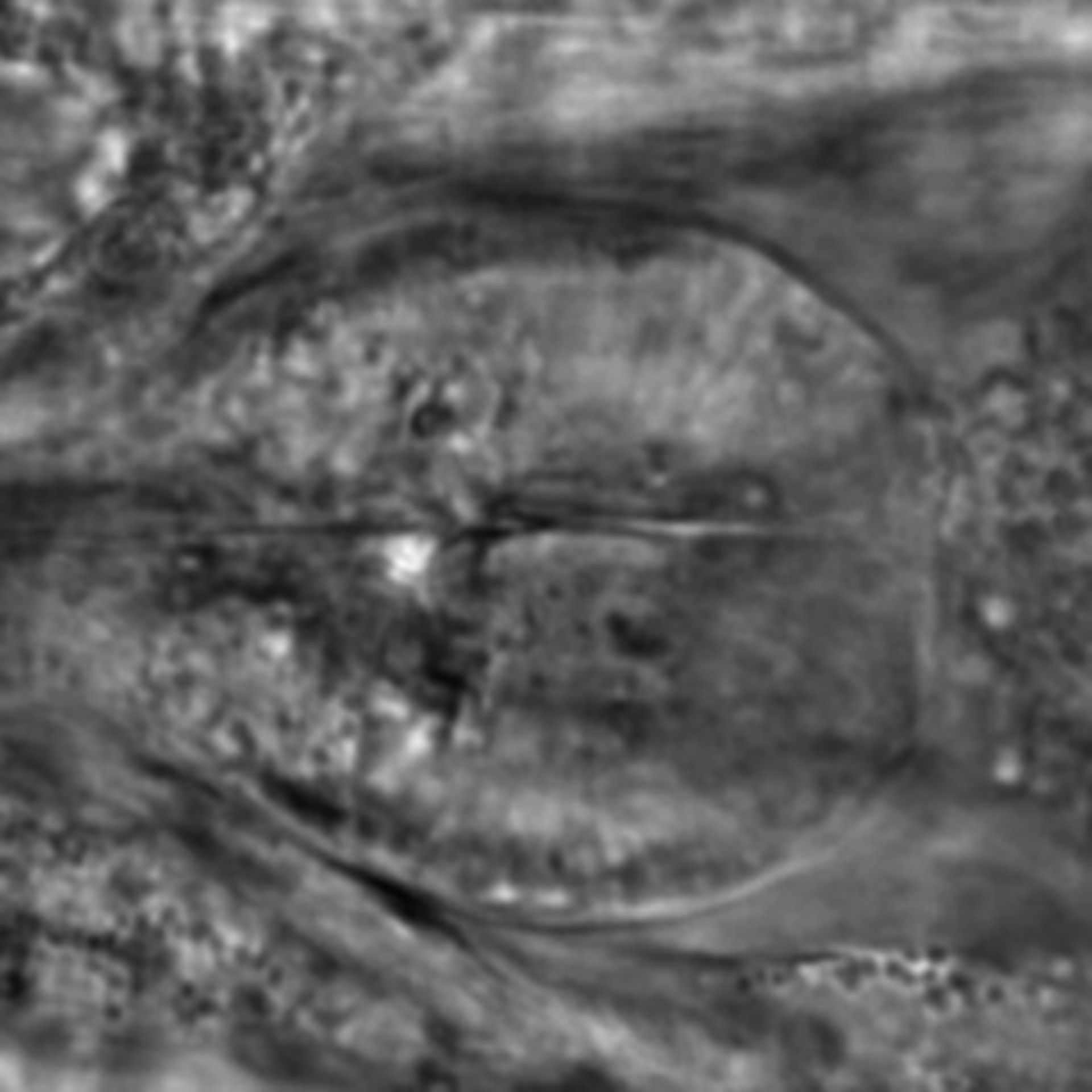 Caenorhabditis elegans - CIL:1987