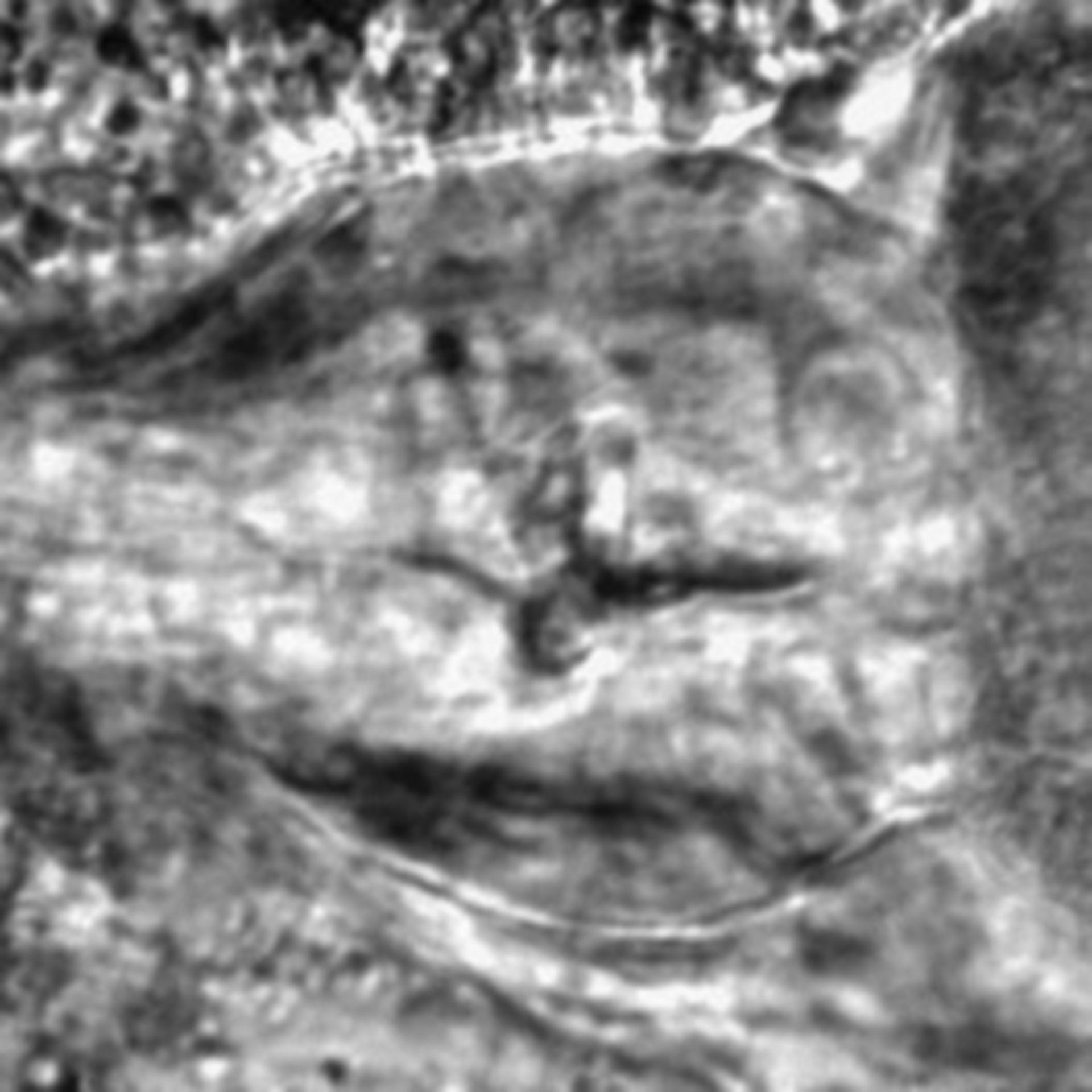 Caenorhabditis elegans - CIL:2291