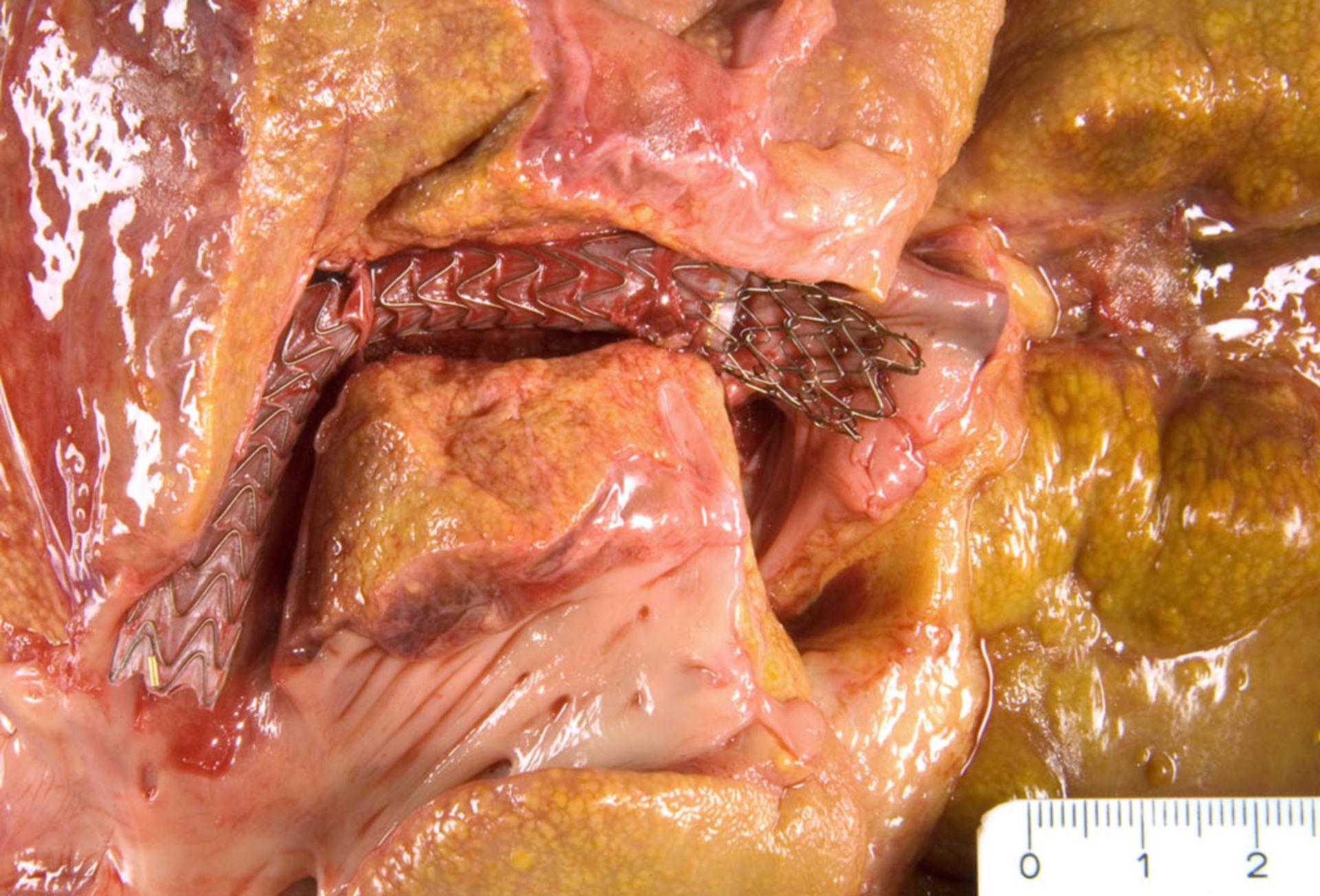 Transjugular intrahepatic portosystemic shunt, TIPS (Detail)