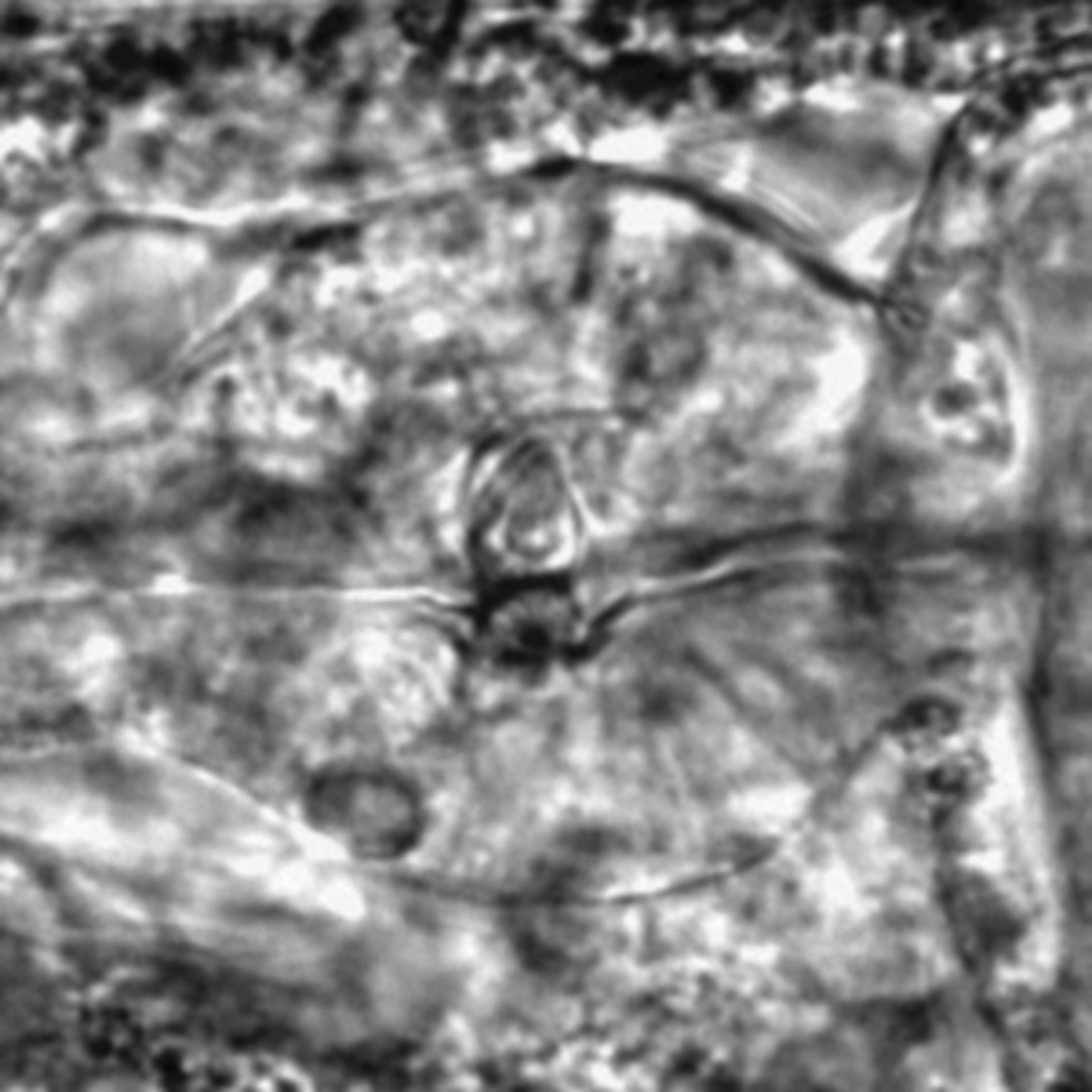 Caenorhabditis elegans - CIL:2193
