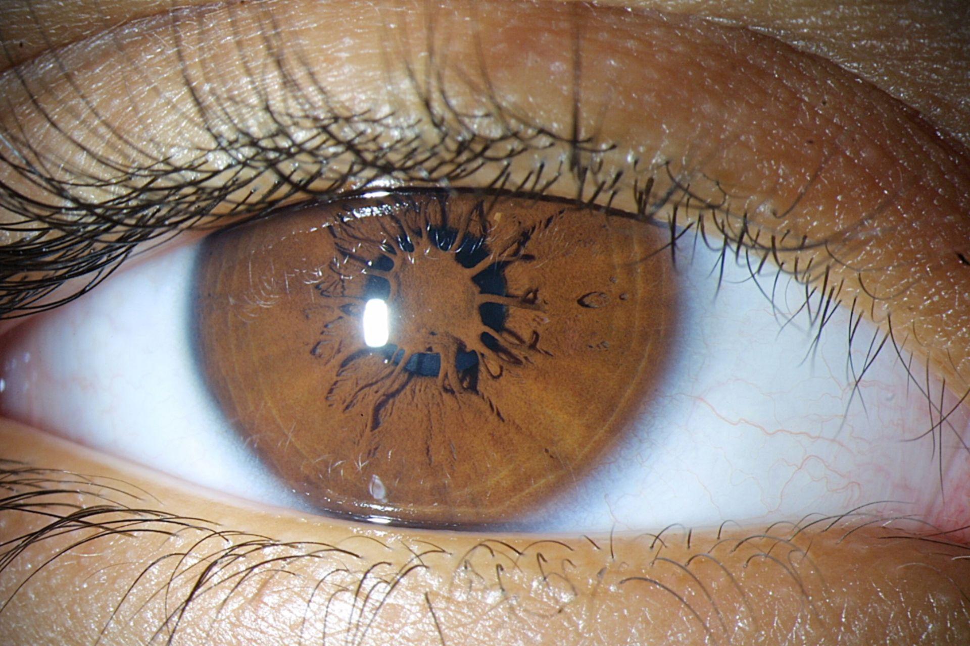 Membrana persistente pupillare