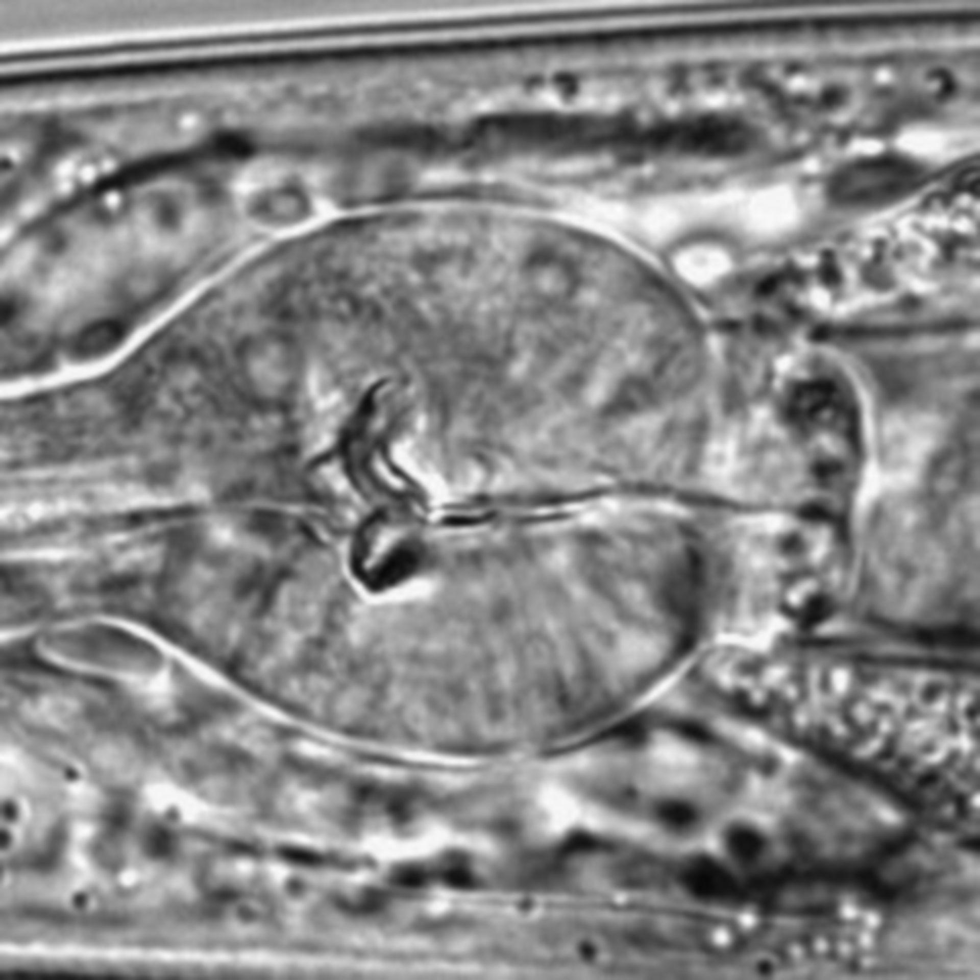 Caenorhabditis elegans - CIL:1604